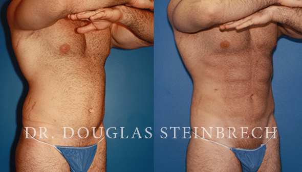 Before and After Abdominal Liposuction and Gynecomastia Reduction with Dr. Steinbrech