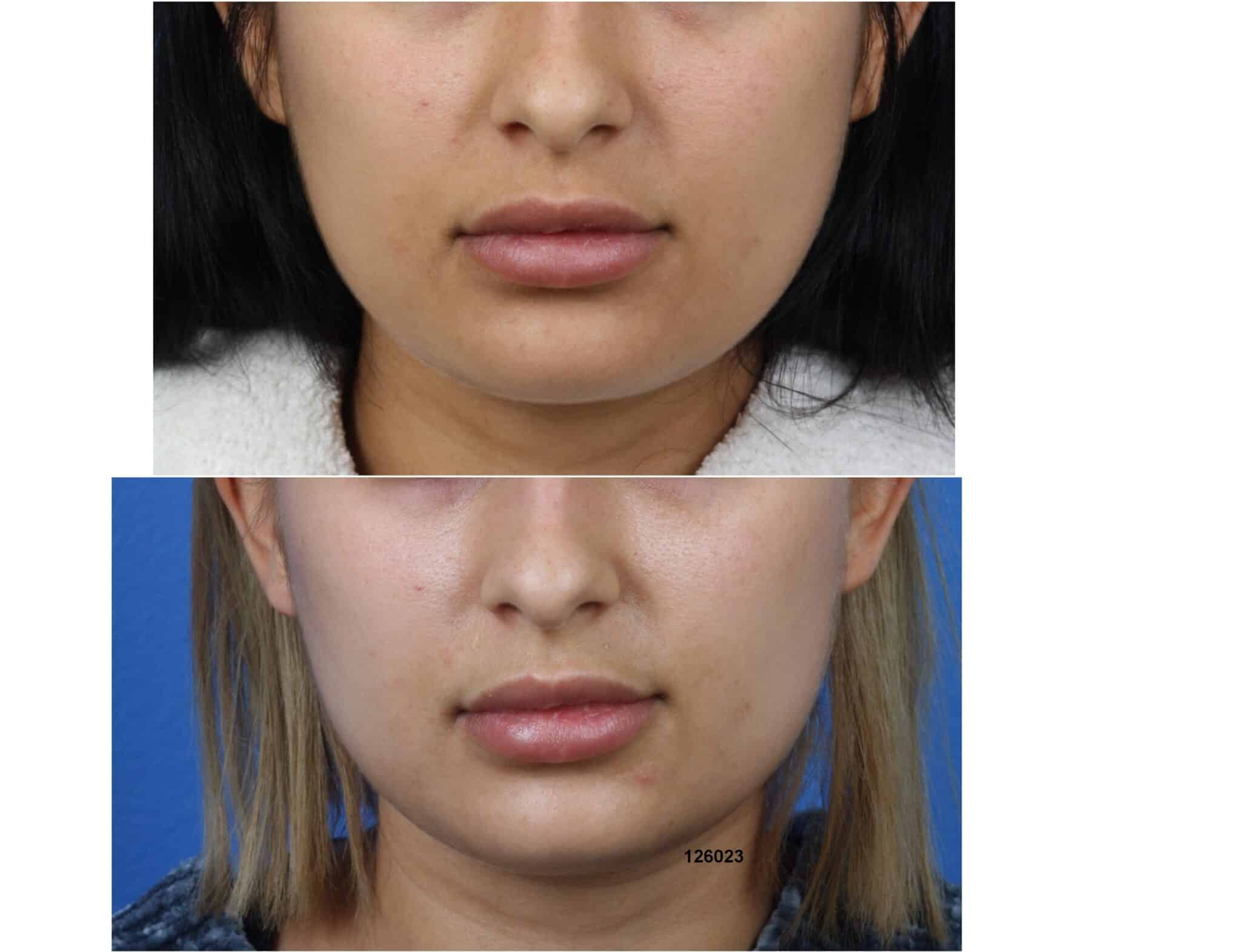 Buccal fat removal with Dr. Miller