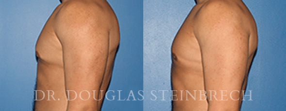 Gynecomastia Removal with Dr. Steinbrech