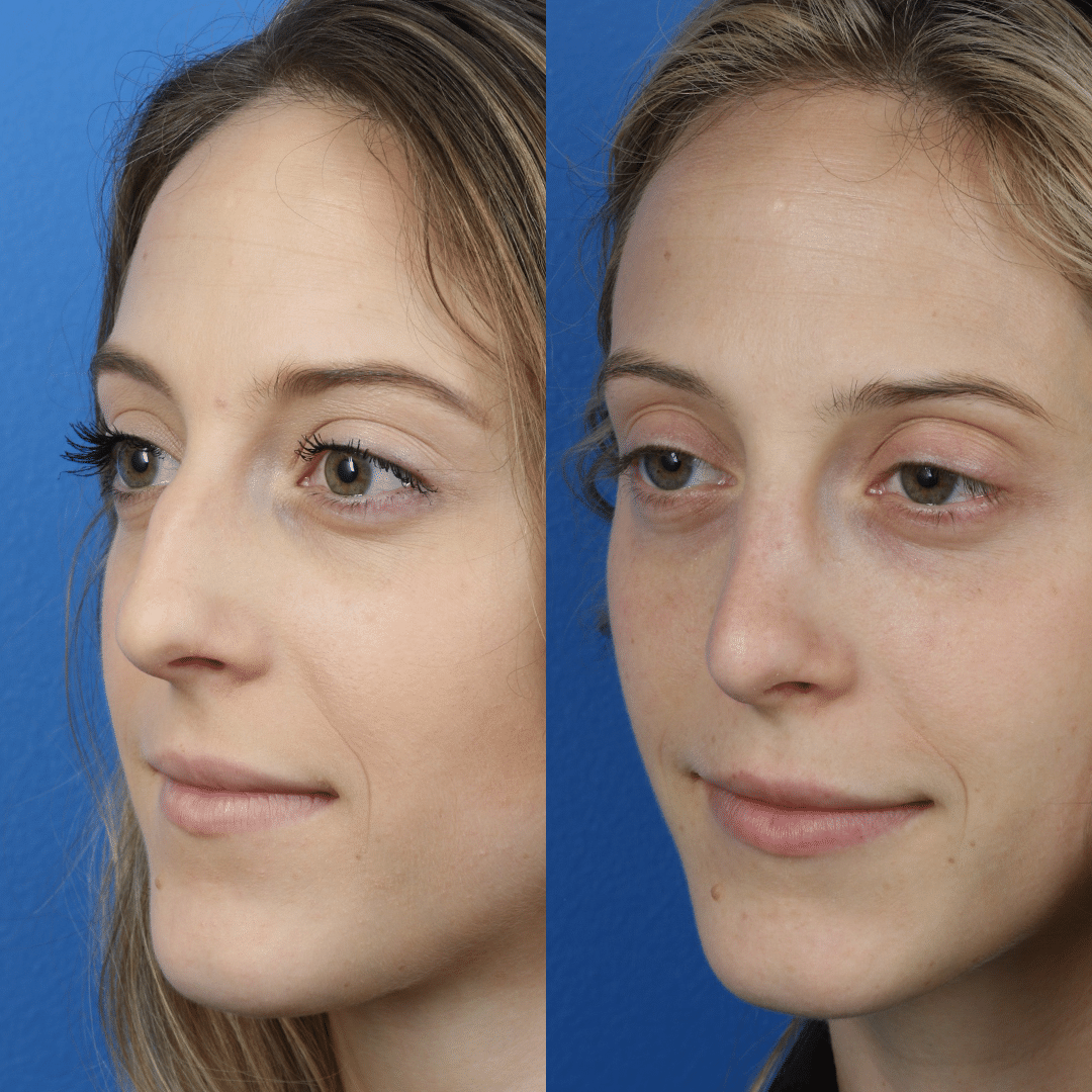 Rhinoplasty and Dermal Fillers with Dr. Miller