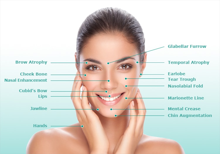 image of a female face labelling anatomy of the face for liquid facelift procedure, New York, NY