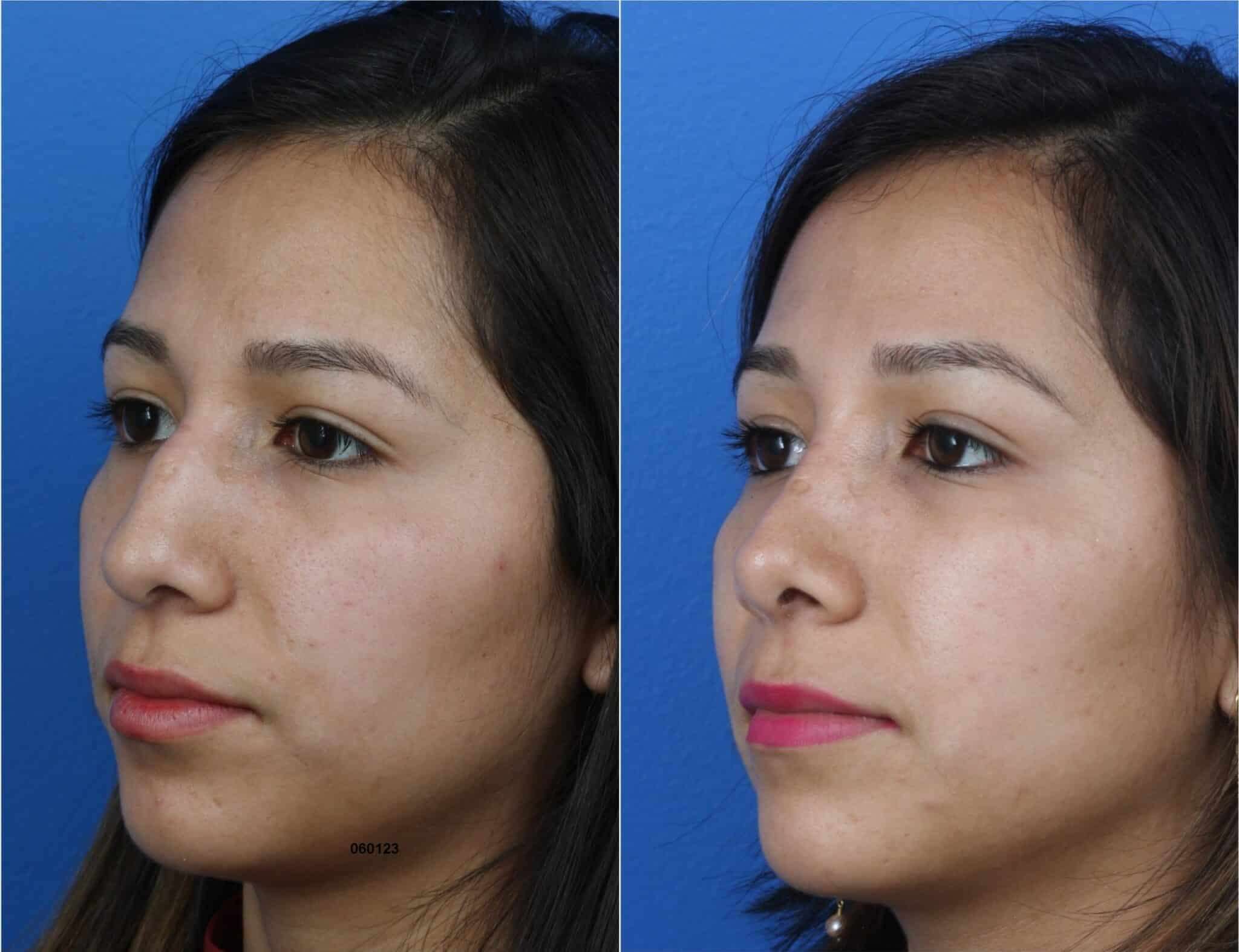 Rhinoplasty to Eliminate Dorsal Hump and Enhance Nose Shape by Dr. Miller