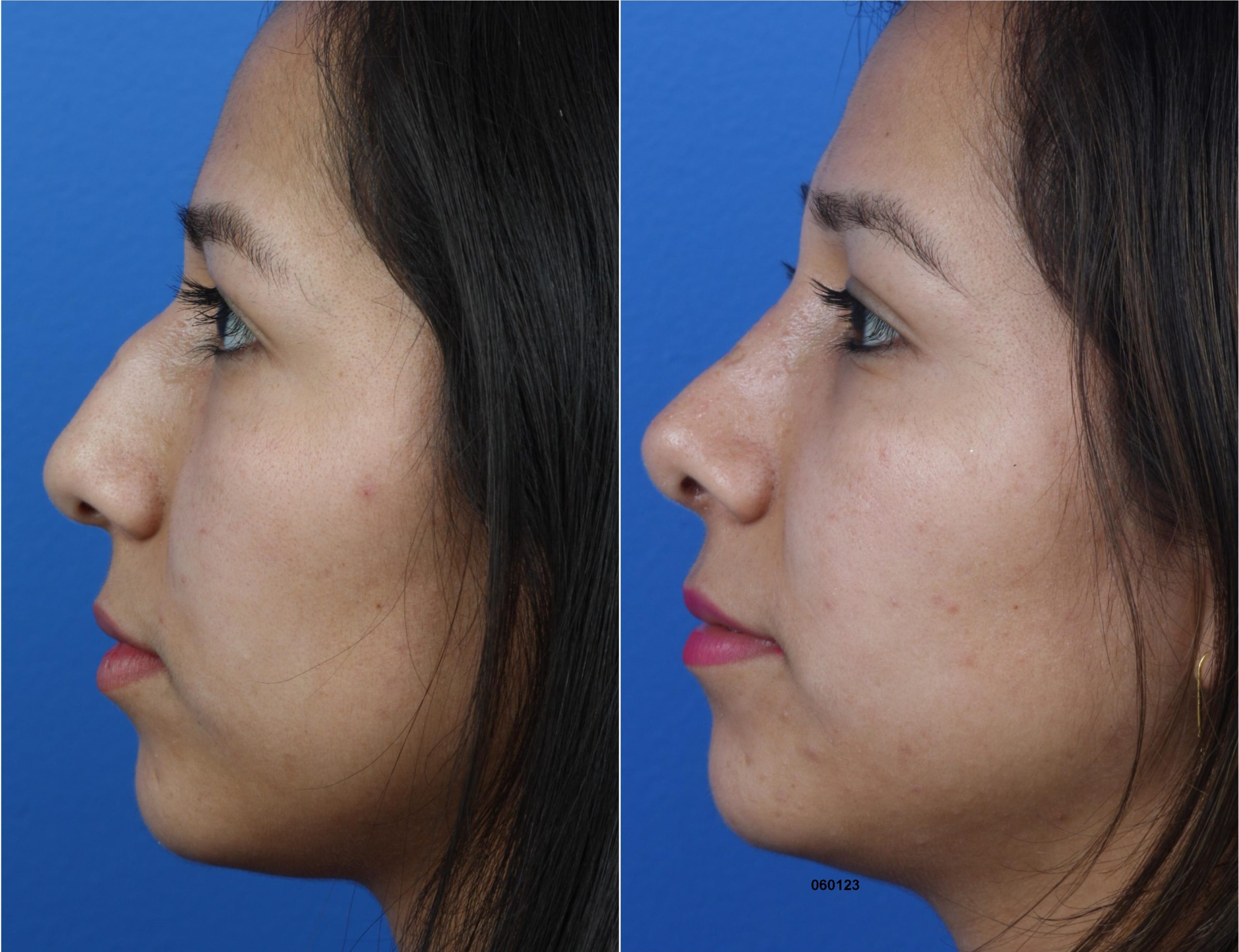 Rhinoplasty to Remove Hump on Nasal Bridge and Refine Tip by Dr. Miller