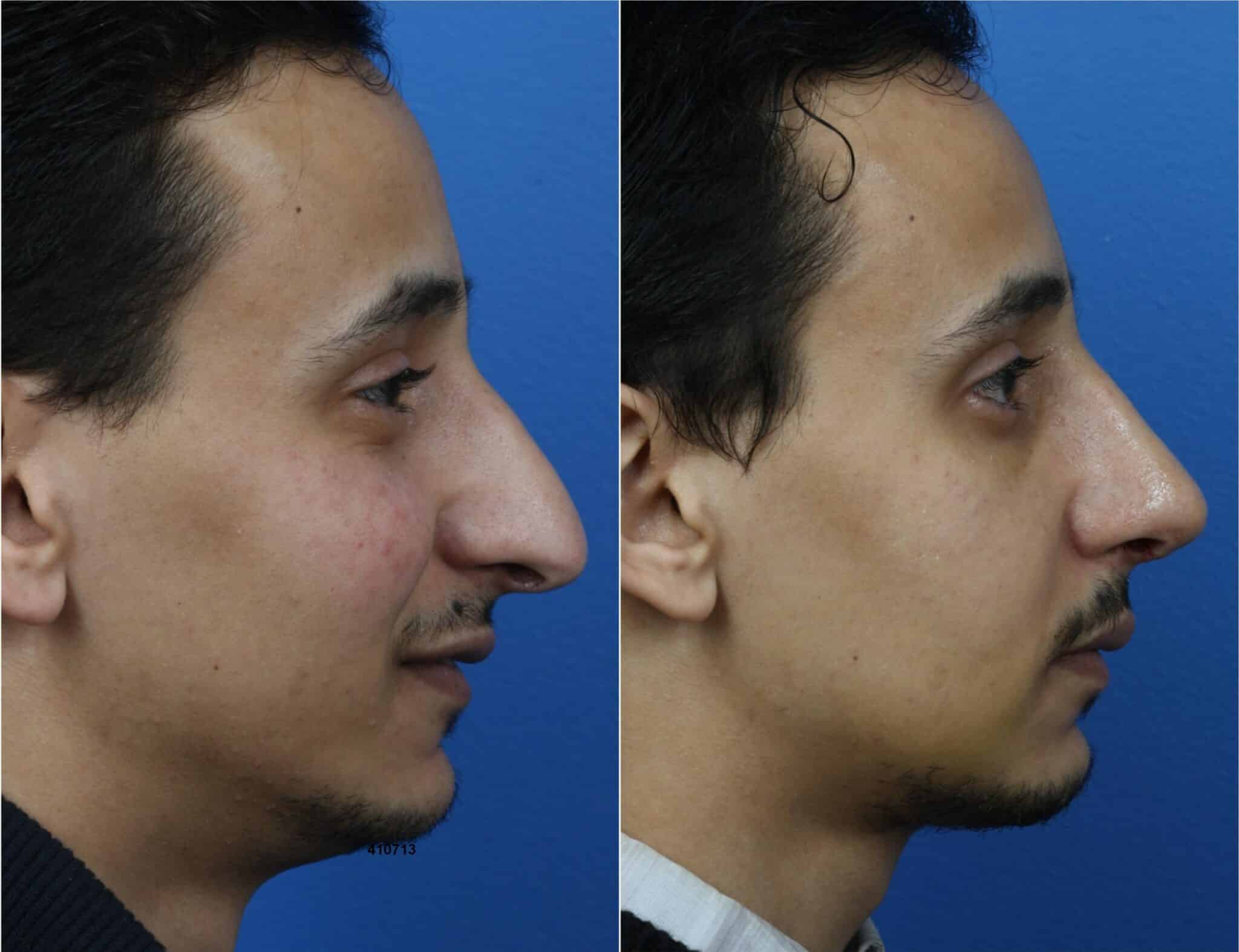 Rhinoplasty to Correct Nasal Bridge and Refine Profile by Dr. Miller