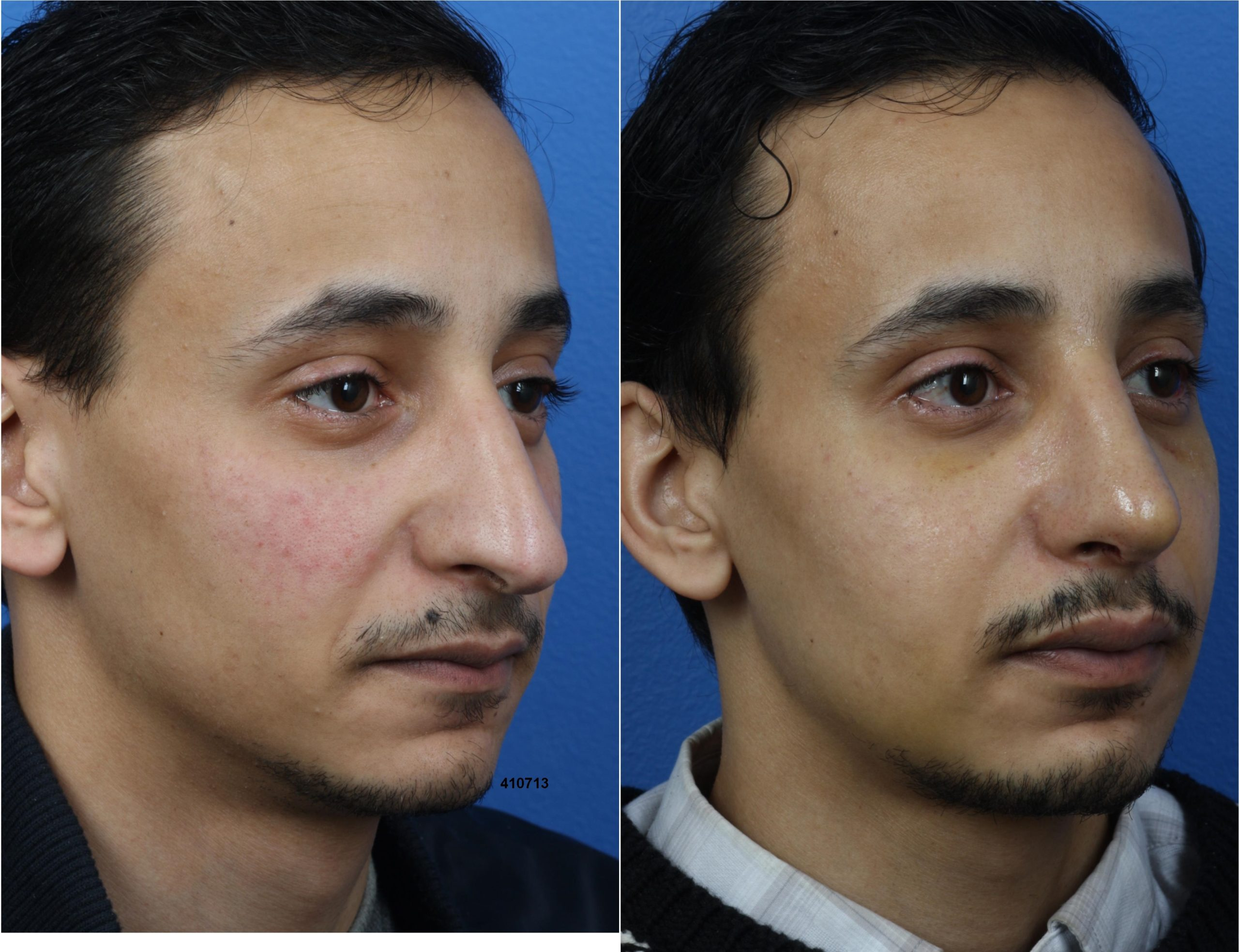 Rhinoplasty to Shorten Nose and Refine Tip by Dr. Miller