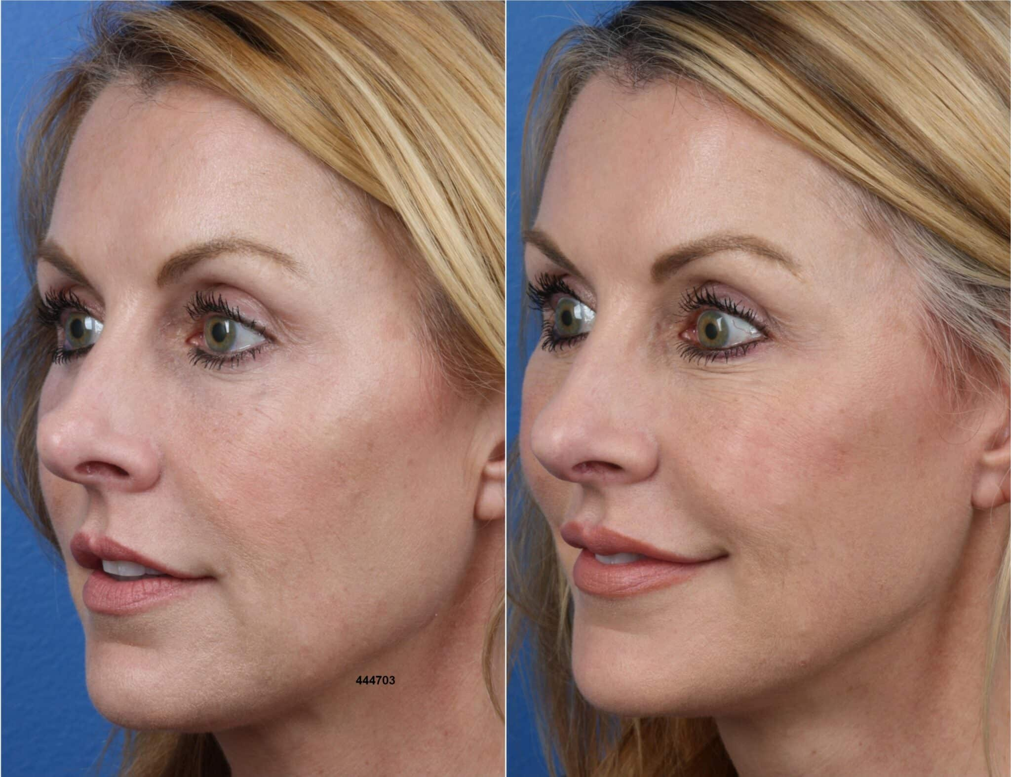 Rhinoplasty Using the NatraNose Technique by Dr. Miller