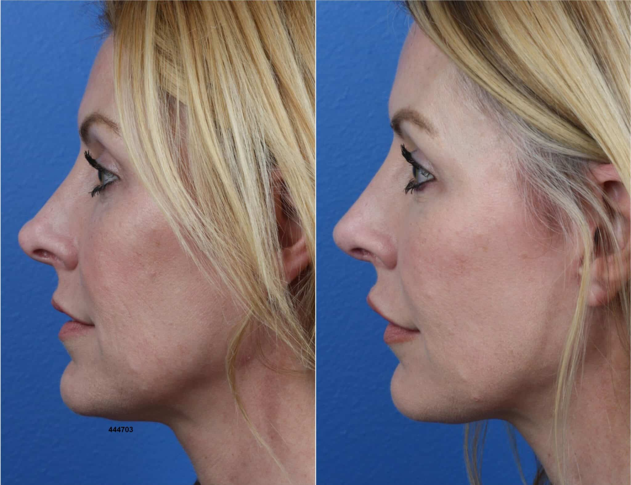 Rhinoplasty to Refine Nasal Tip and Enhance Facial Profile by Dr. Miller