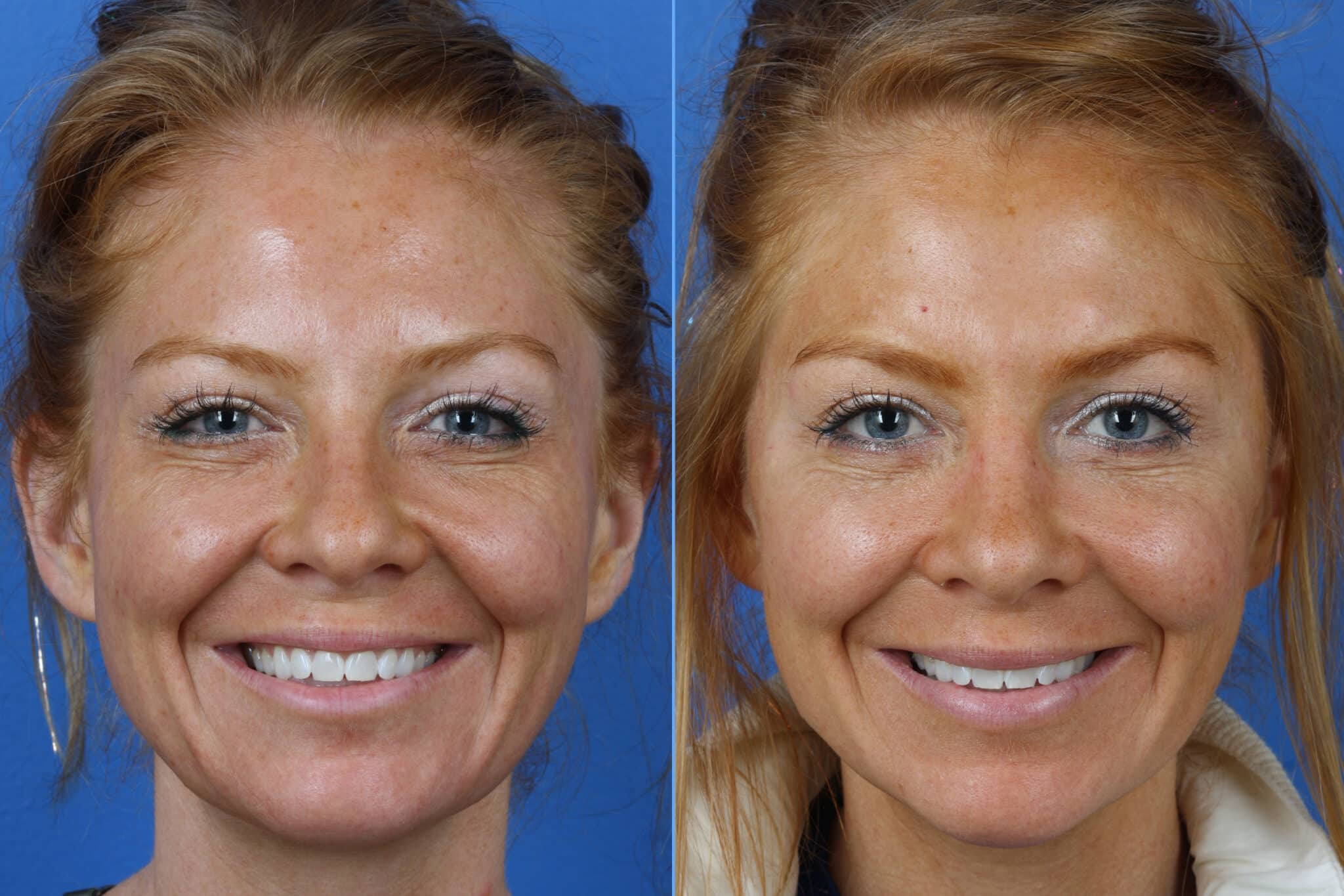 Micro Lift to Correct Skin Laxity and Aging Symptoms by Dr. Miller