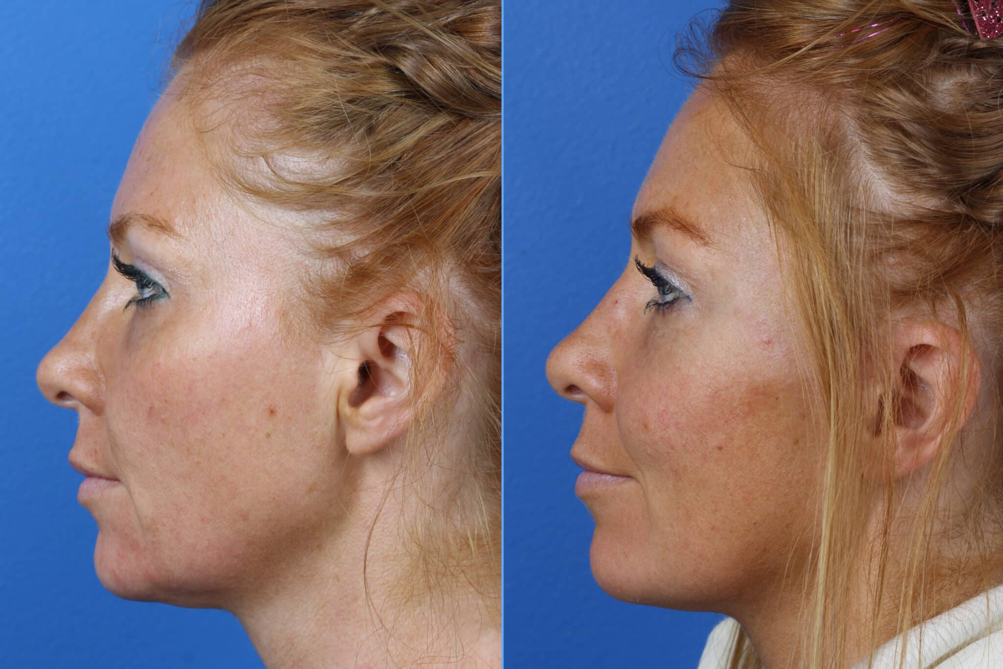 Micro Lift to Reverse Skin Laxity and Early Signs of Aging by Dr. Miller