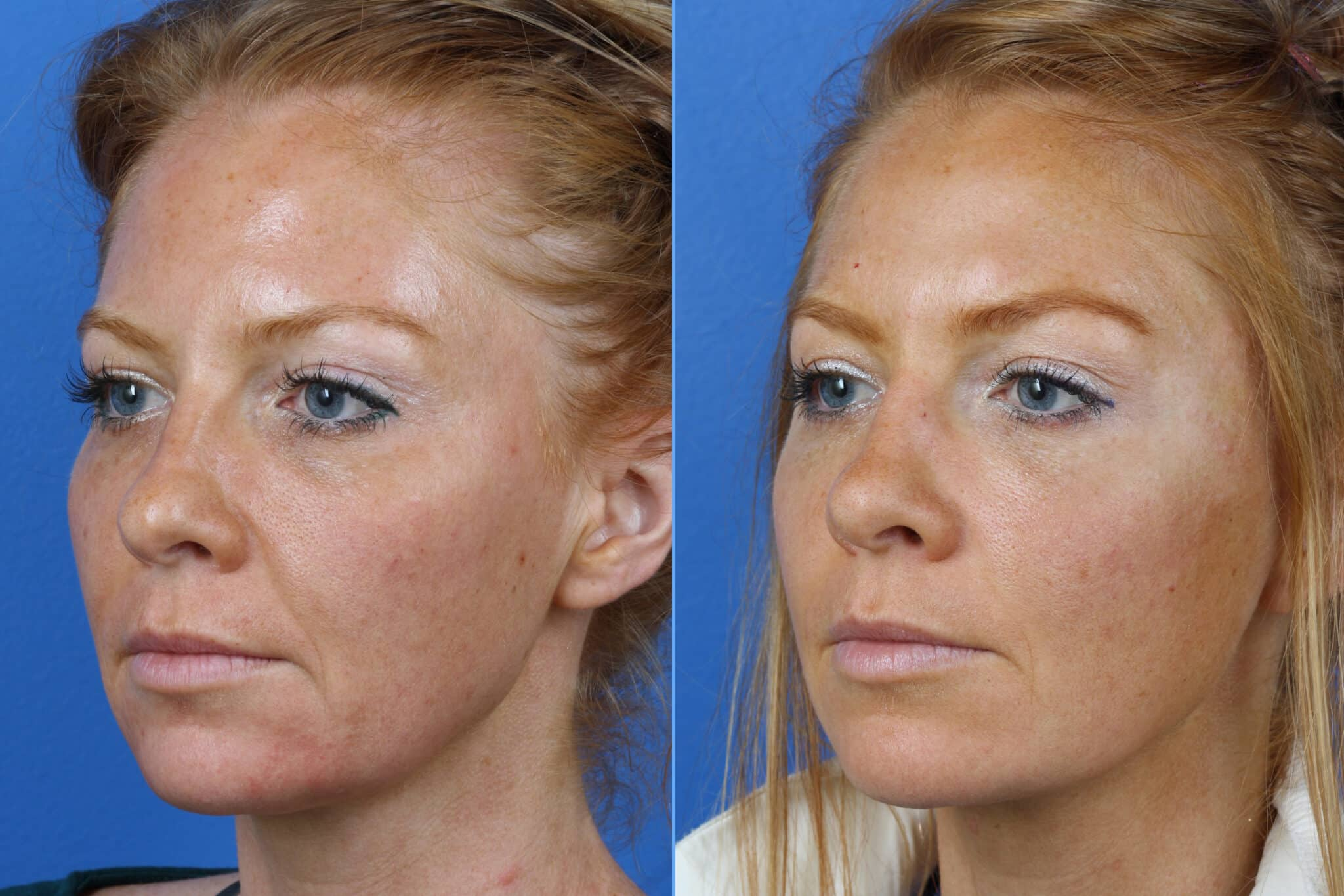 Micro Lift to Firm Skin and Reverse Aging Symptoms by Dr. Miller