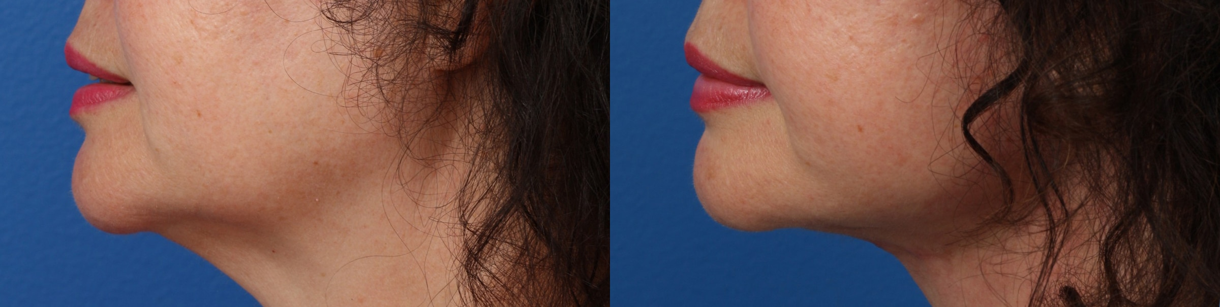 Facelift and Neck Lift to Define the Jawline by Dr. Miller