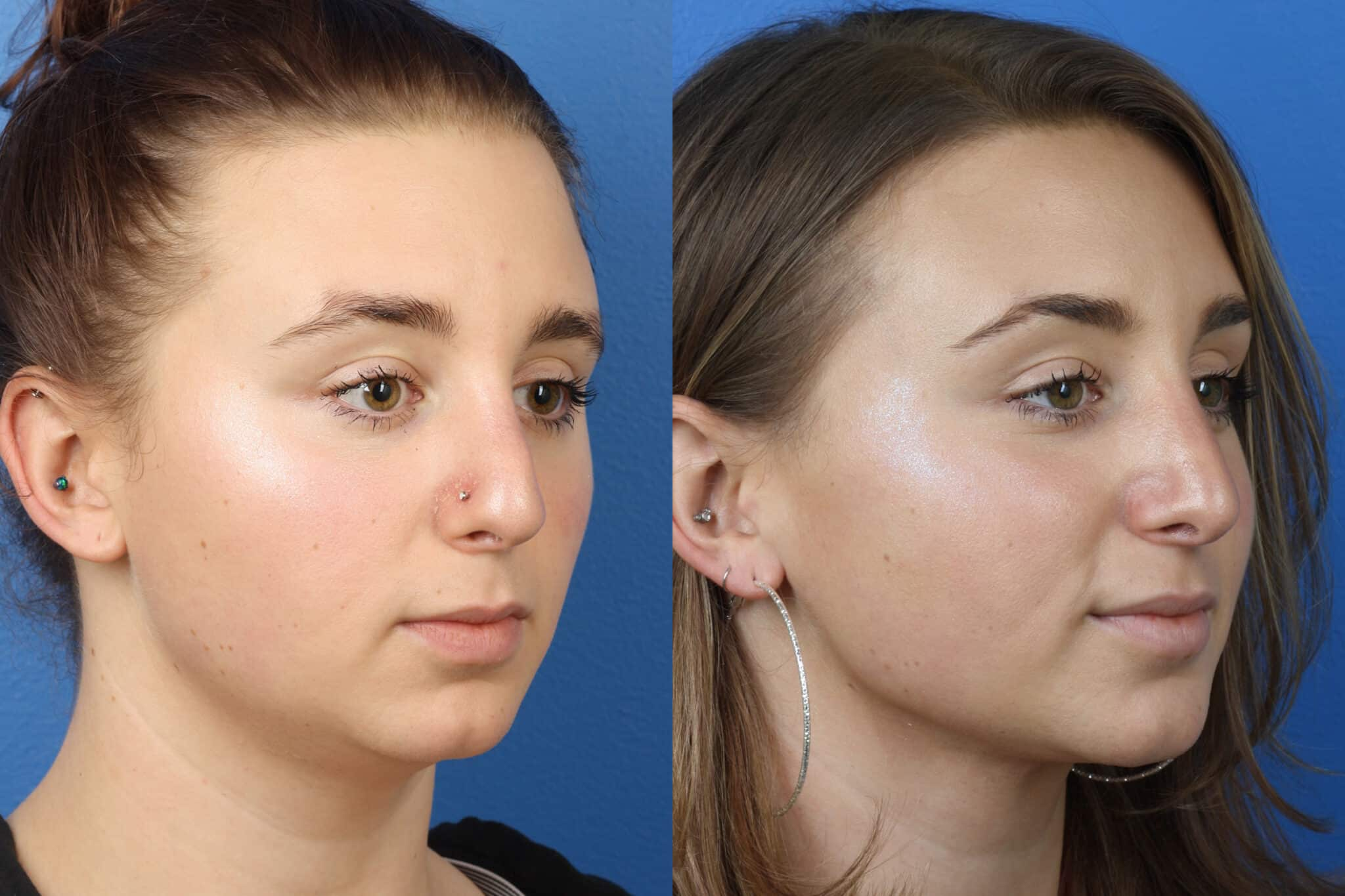 Rhinoplasty to Correct Nasal Bridge and Tip by Dr. Miller