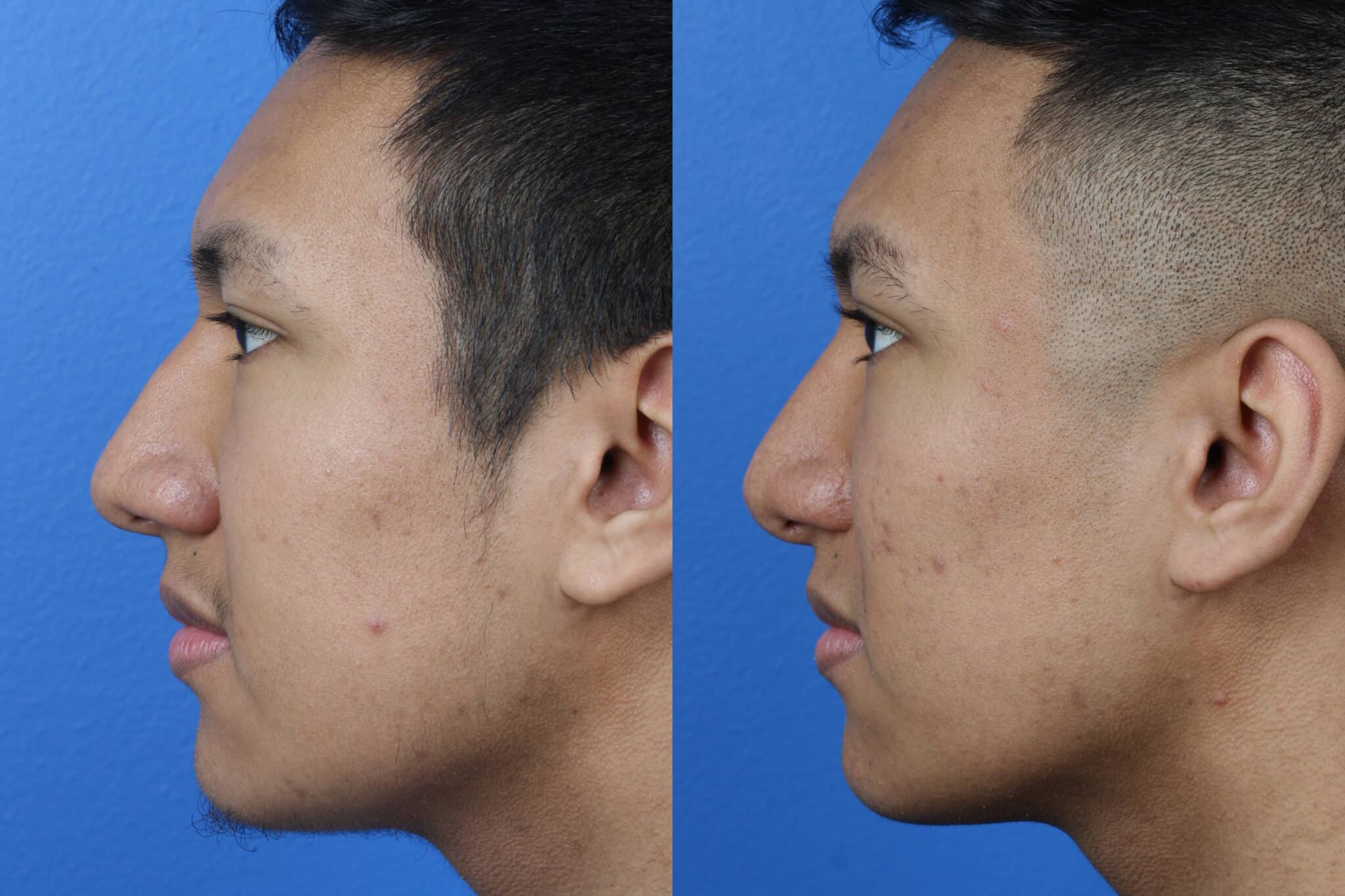 Rhinoplasty to Correct Nasal Bridge and Enhance Facial Profile by Dr. Miller