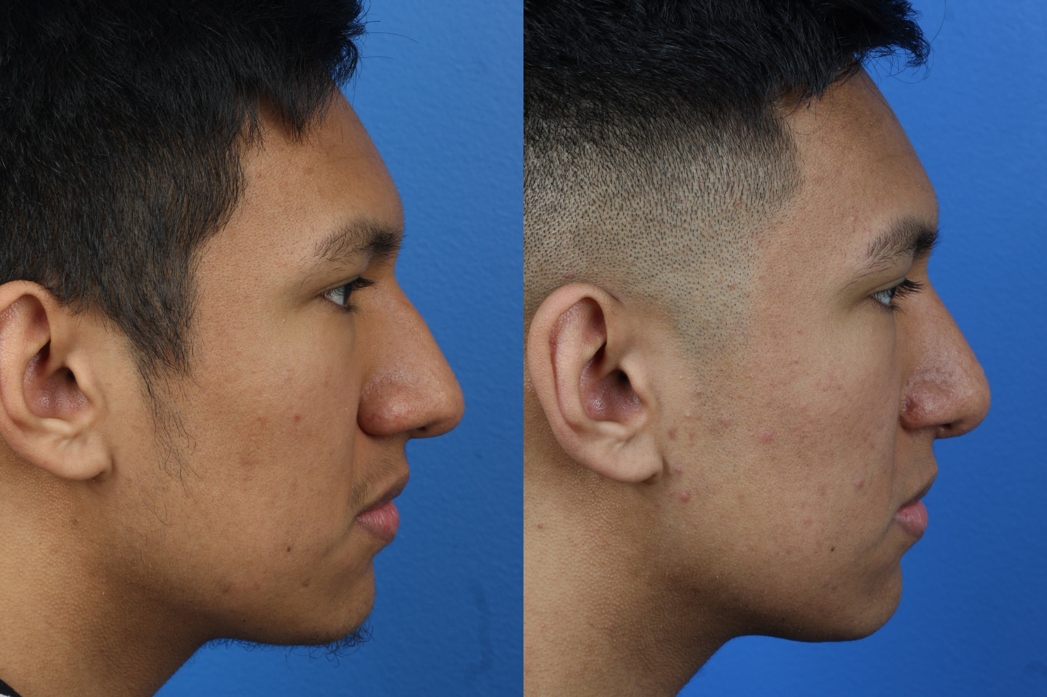 Rhinoplasty to Refine Nasal Bridge by Dr. Miller