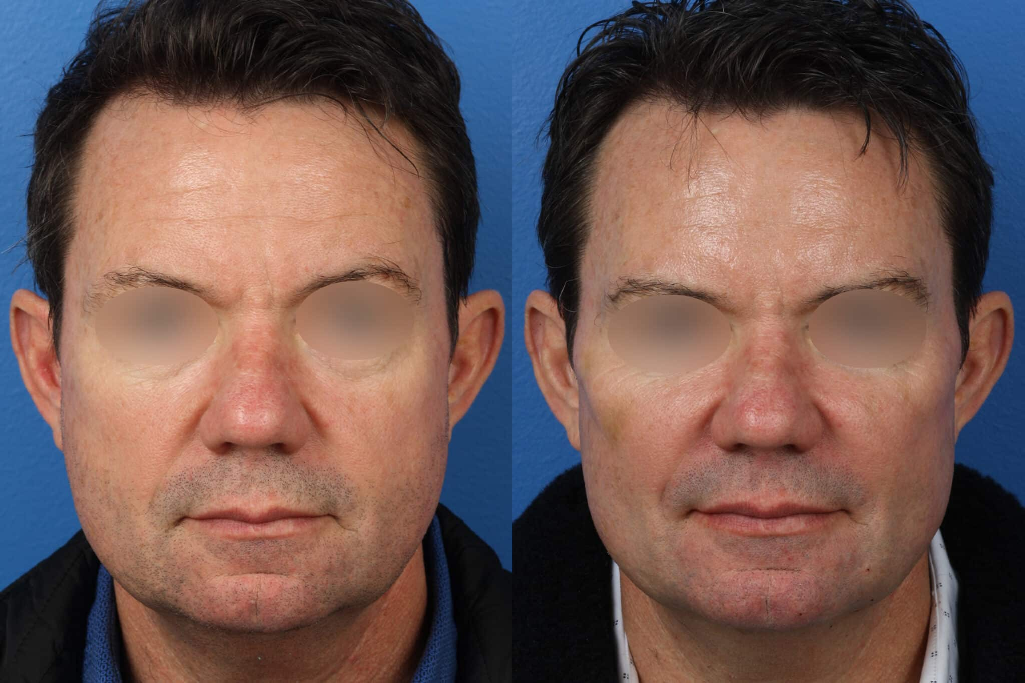 Brow Lift to Rejuvenate the Upper Face by Dr. Miller