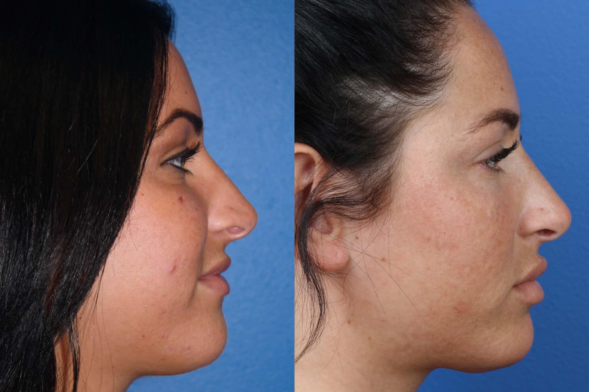 Rhinoplasty to Shorten Nasal Bridge and Refine Tip by Dr. Miller