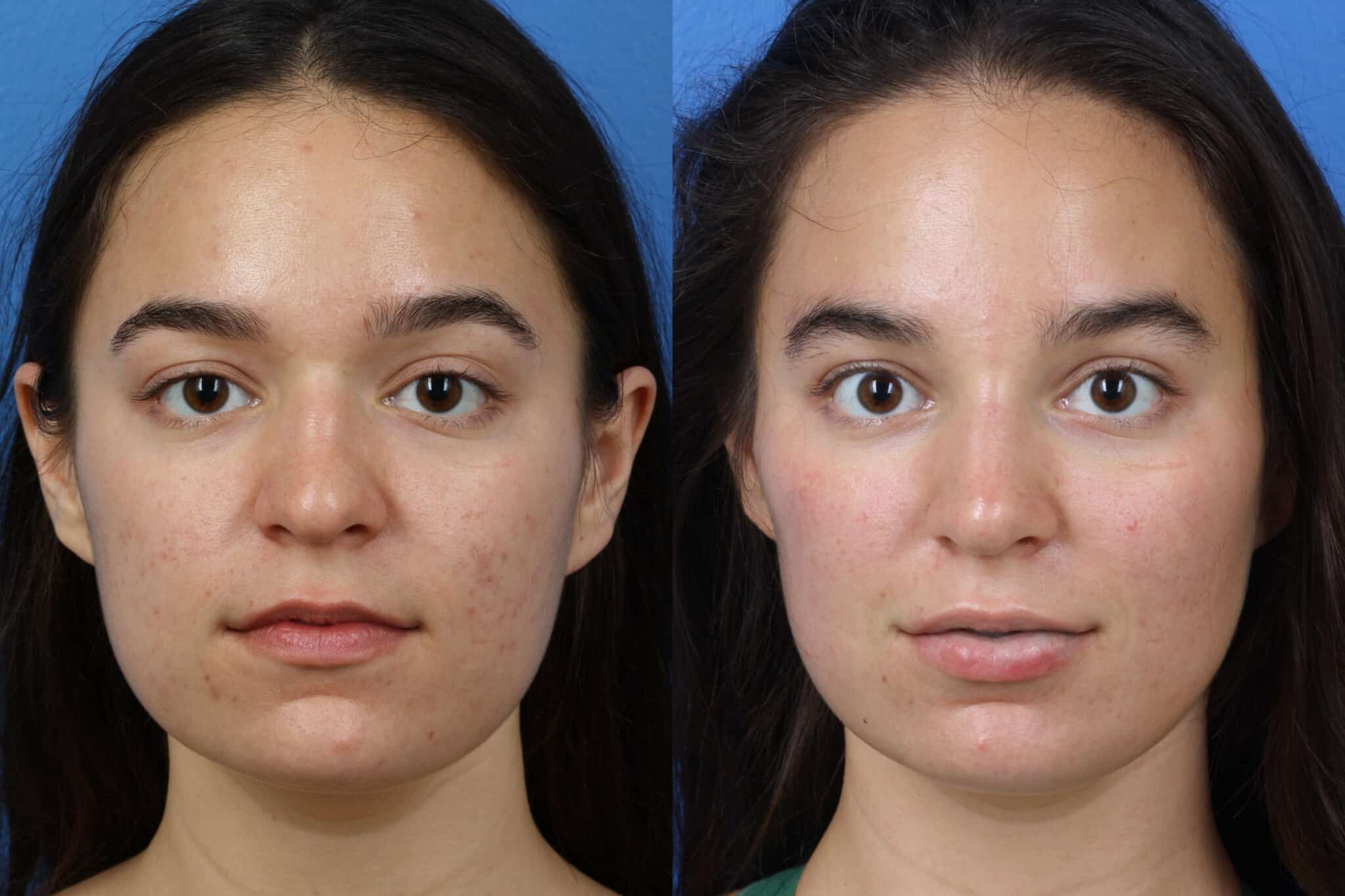 Rhinoplasty to Enhance Nose Shape and Size by Dr. Miller