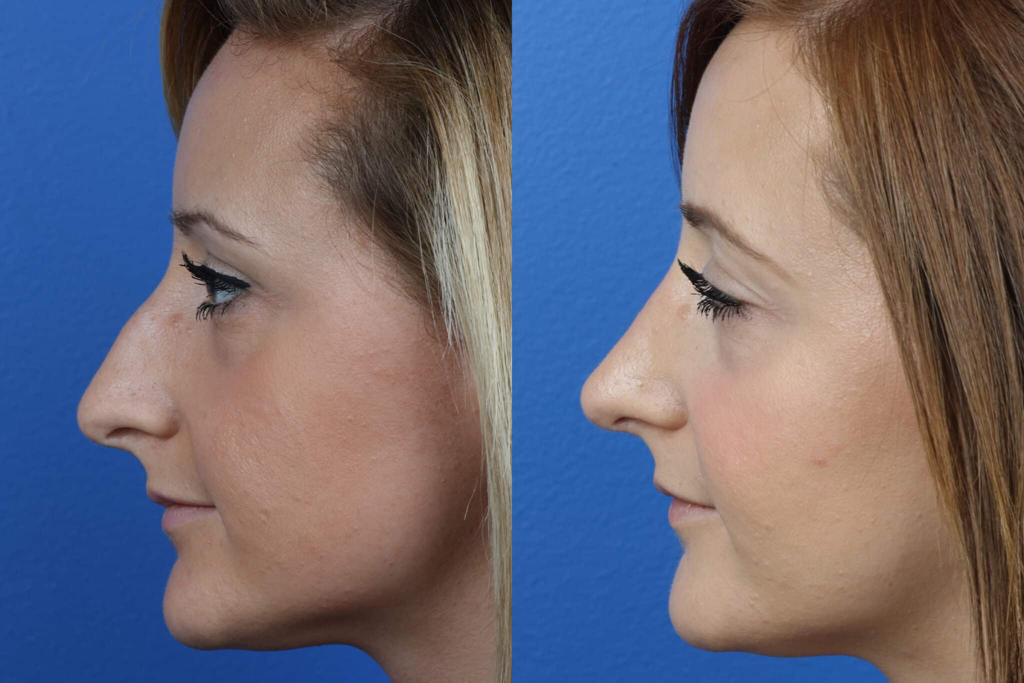 Rhinoplasty to Correct Dorsal Bump by Dr. Miller