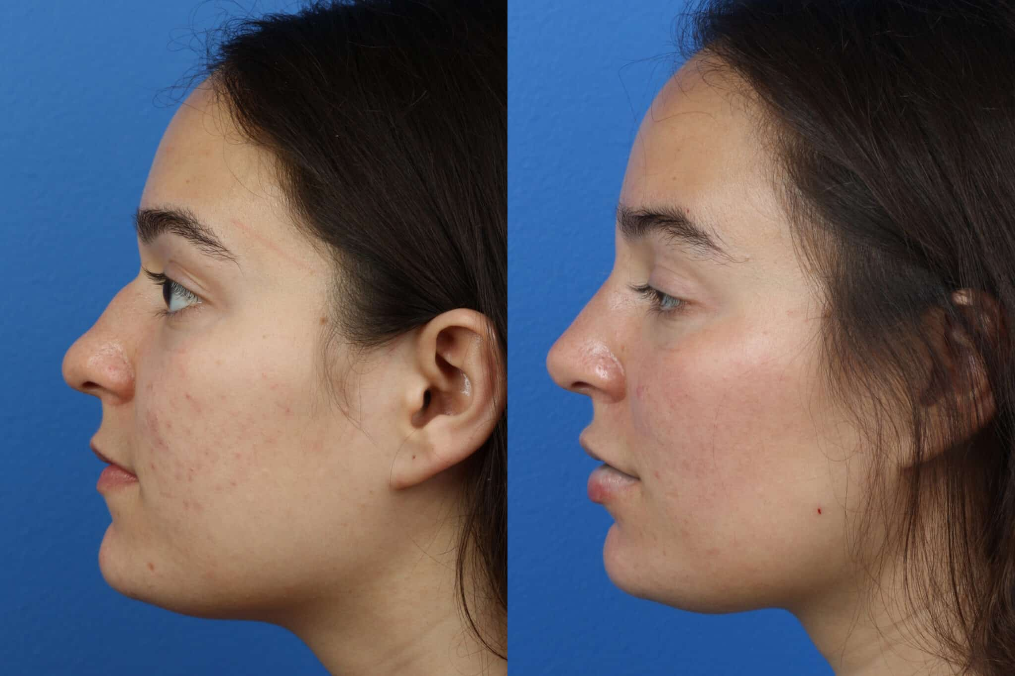 Rhinoplasty to Remove Dorsal Hump by Dr. Miller