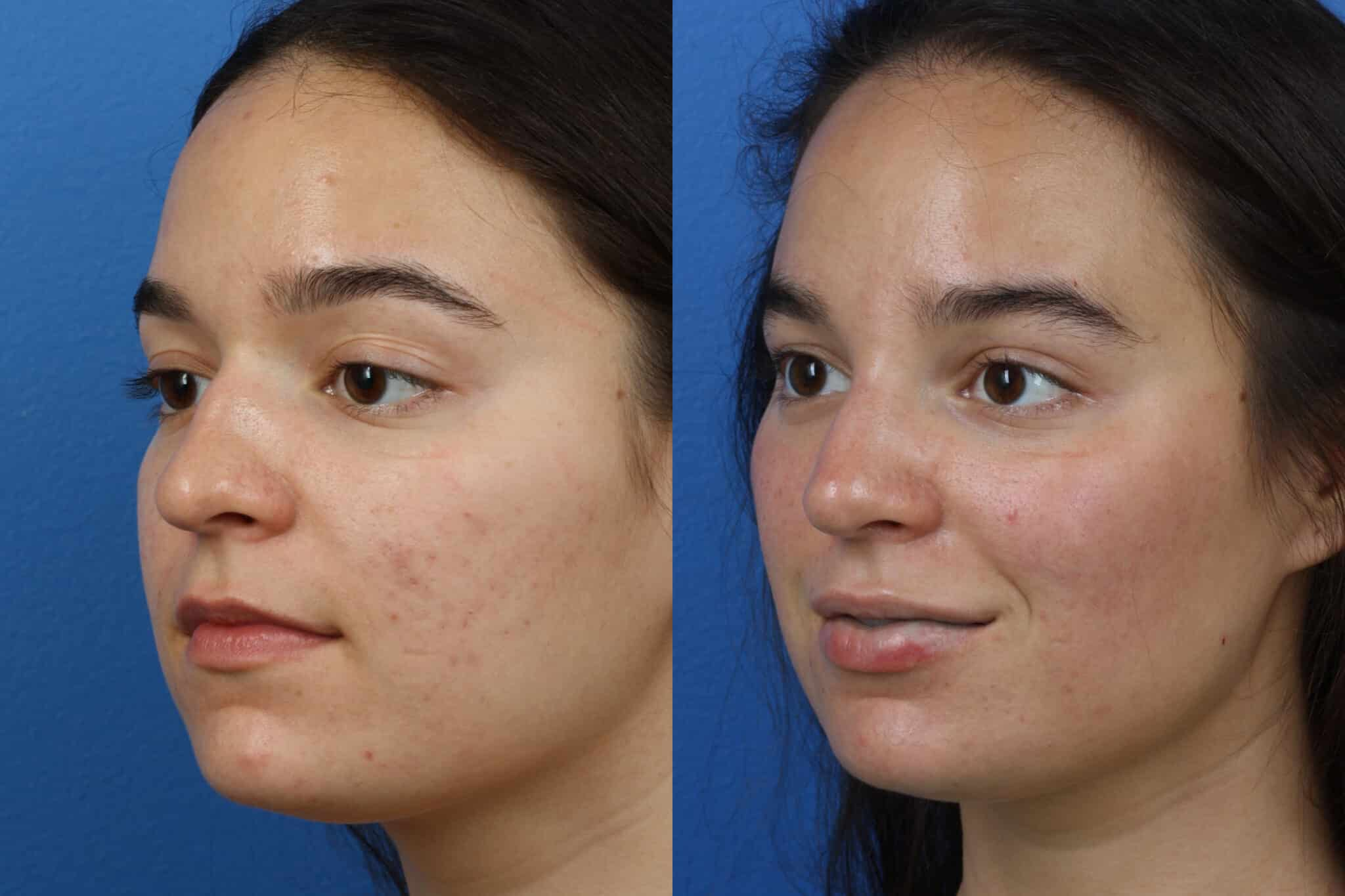 Rhinoplasty to Refine Nasal Bridge and Tip by Dr. Miller