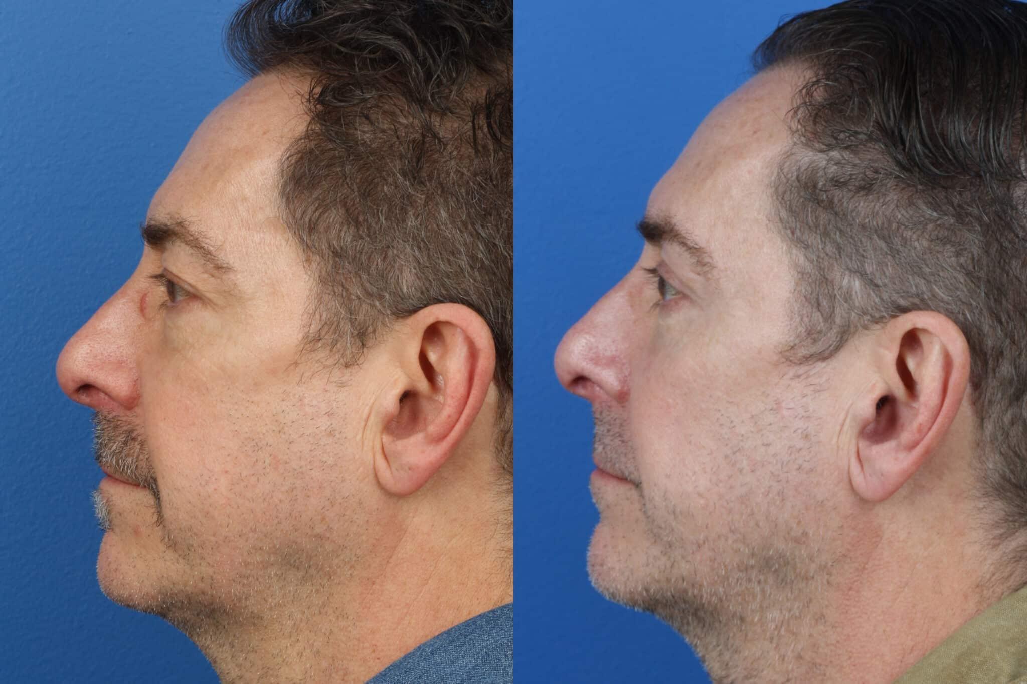 Upper and Lower Blepharoplasty to Rejuvenate the Eyes by Dr. Miller