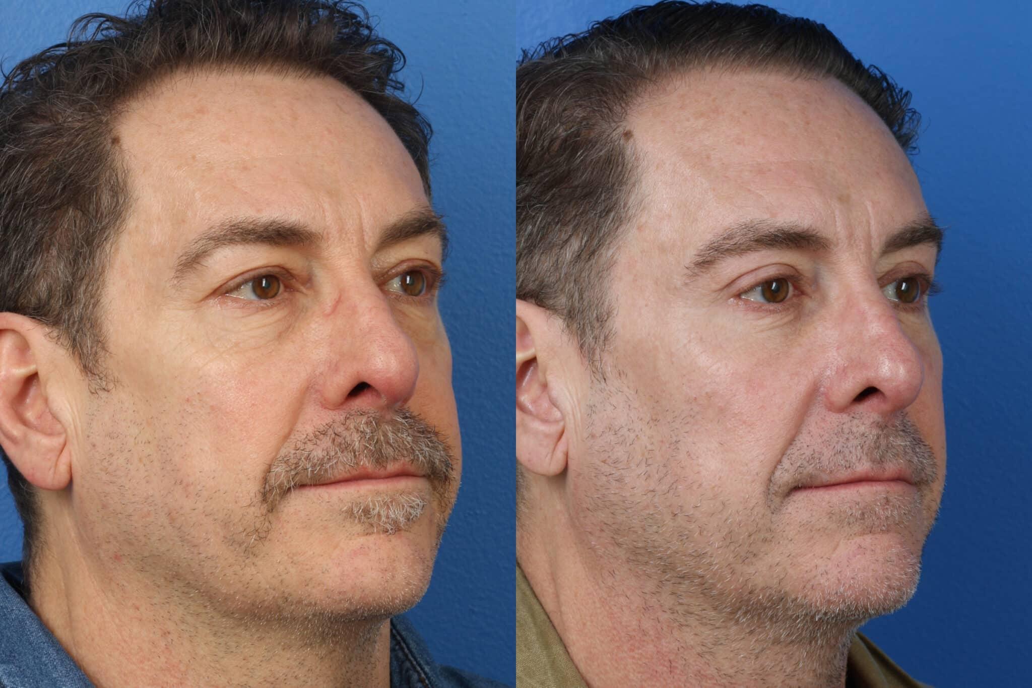 Upper and Lower Blepharoplasty to Rejuvenate Aging Eyes by Dr. Miller