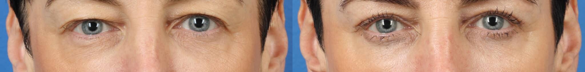 Blepharoplasty to Rejuvenate Eyes by Dr. Miller