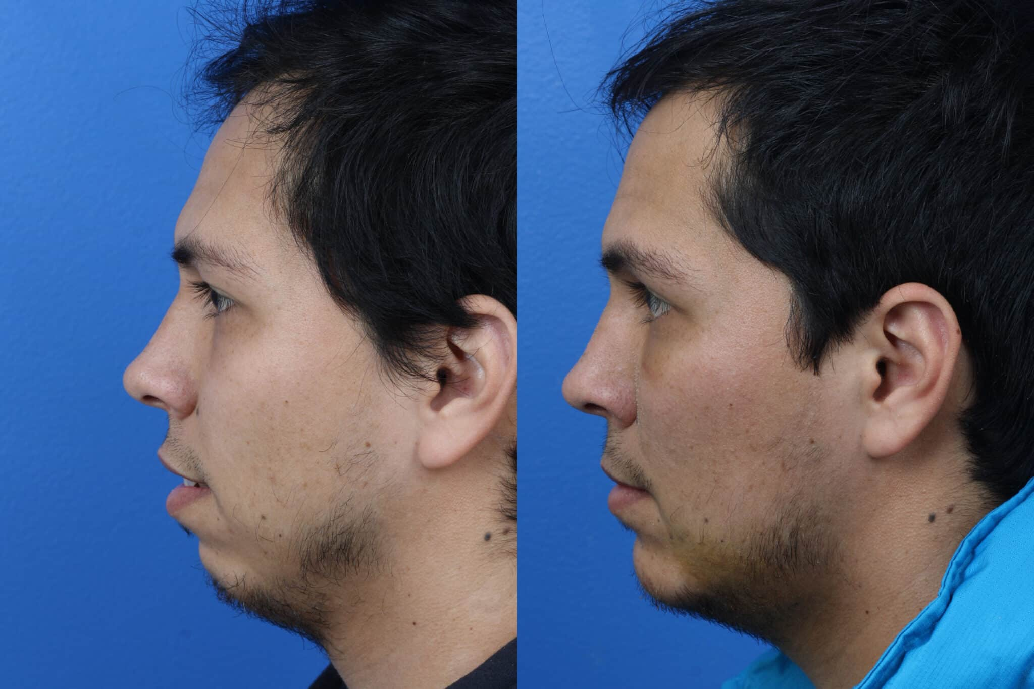 Chin Implant to Augment the Chin of a Male Patient by Dr. Miller