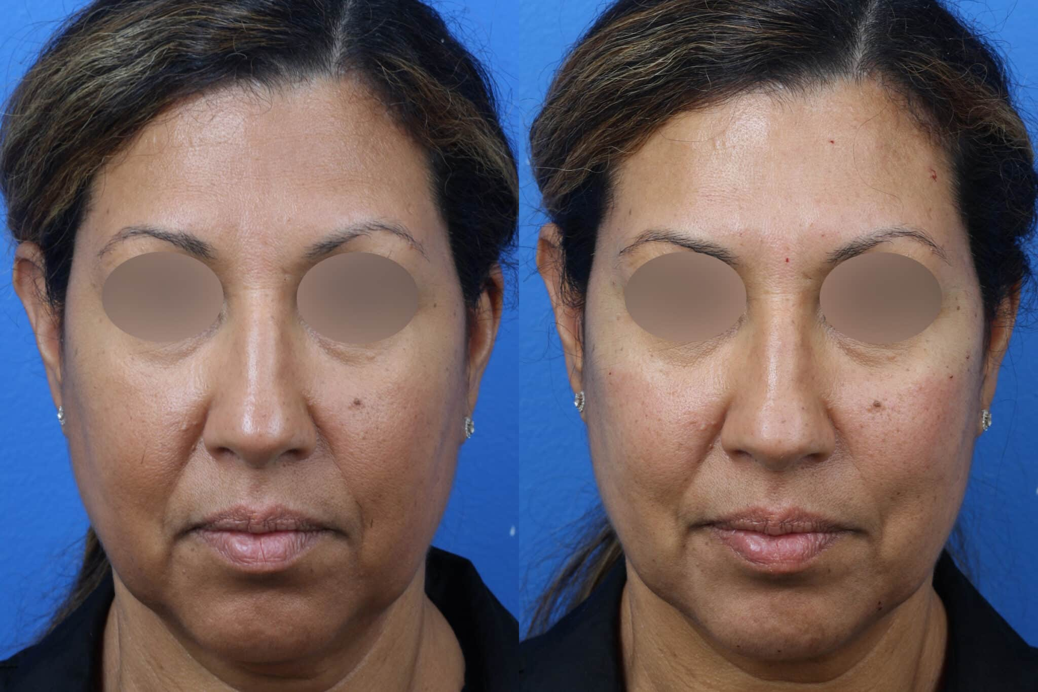 Cheek Filler to Augment the Cheeks of a Female Patient by Dr. Miller