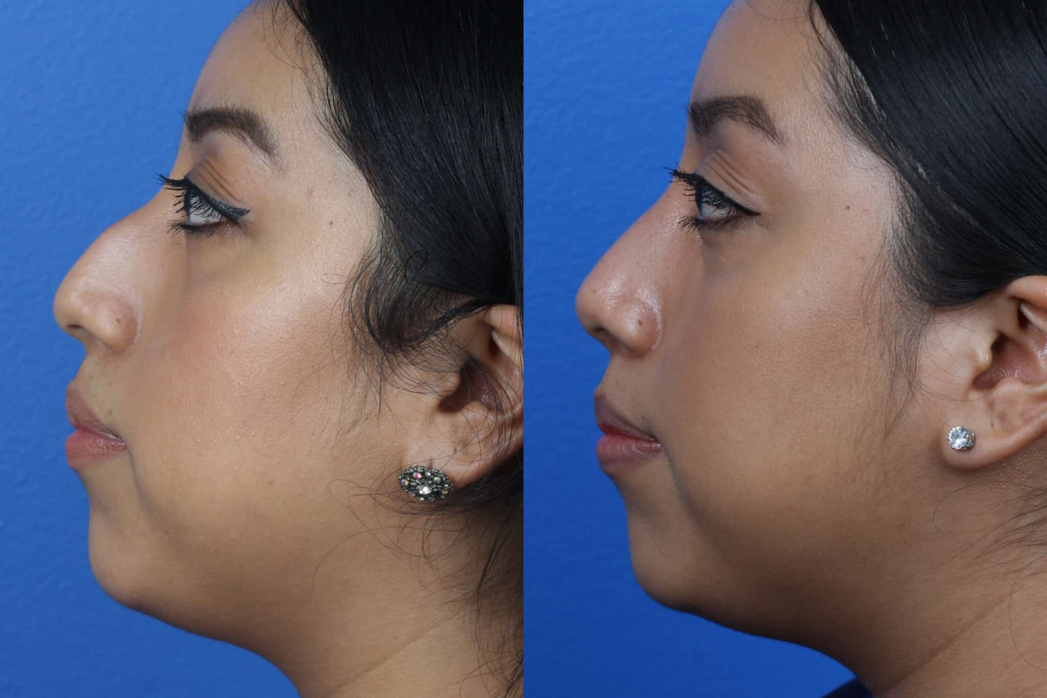 Rhinoplasty to Straighten the Nasal Bridge of a Female Patient by Dr. Miller