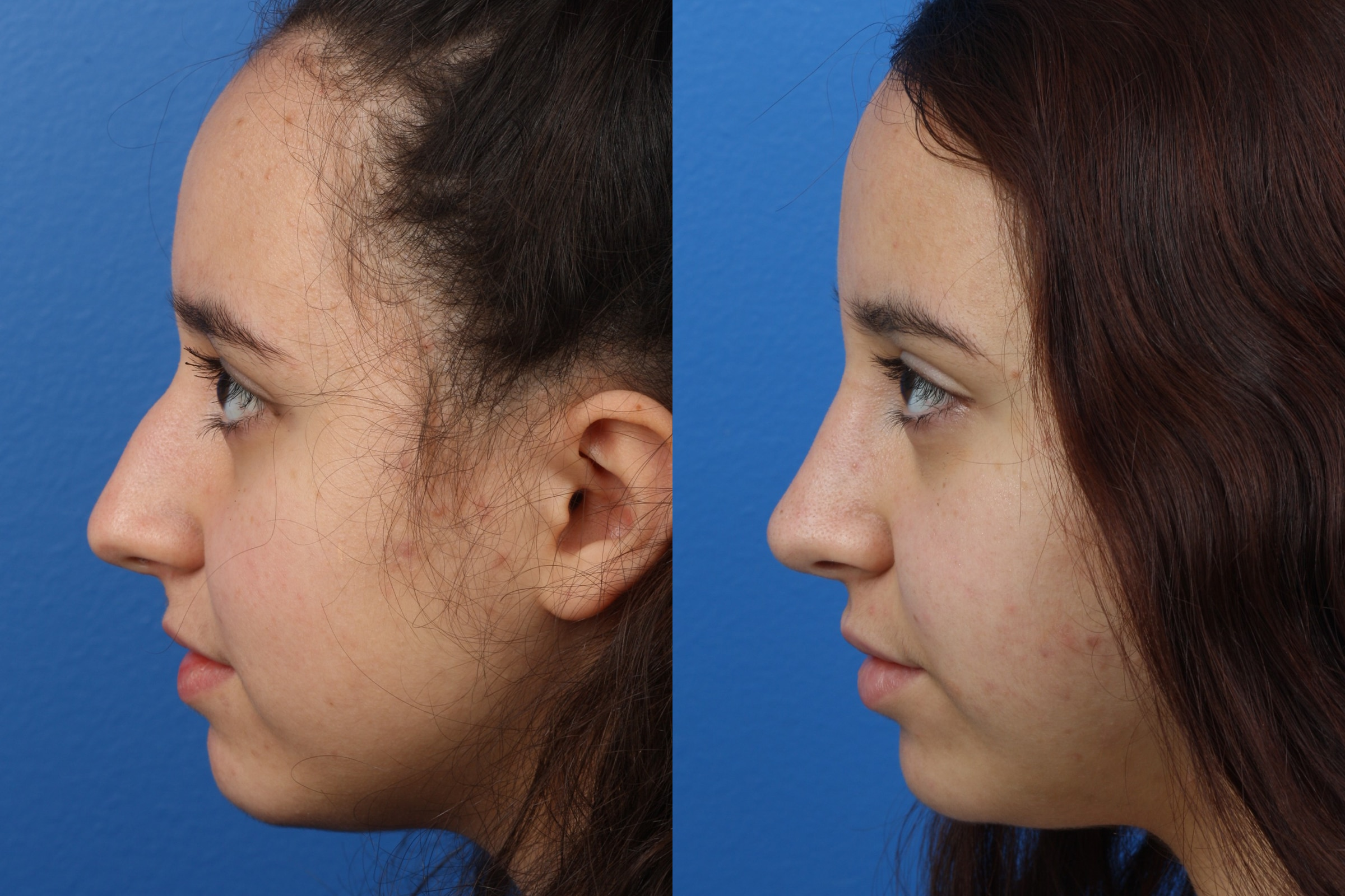 Rhinoplasty to Straighten the Bridge of a Female Patient by Dr. Miller