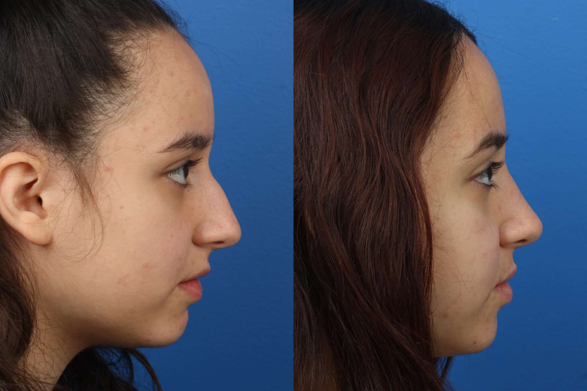 Rhinoplasty to Remove Hump from Nasal Bridge of a Female Patient by Dr. Miller