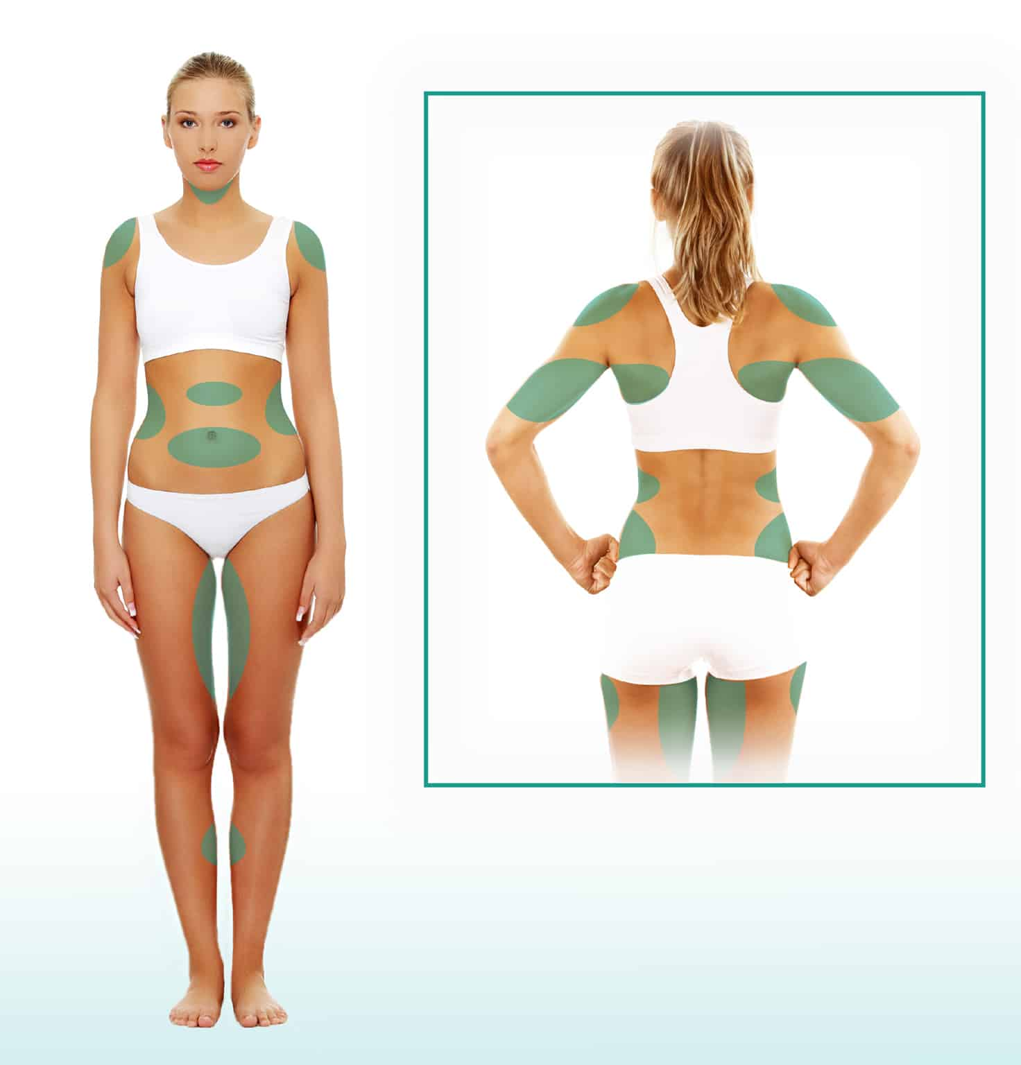 liposuction body contouring diagram in new york
