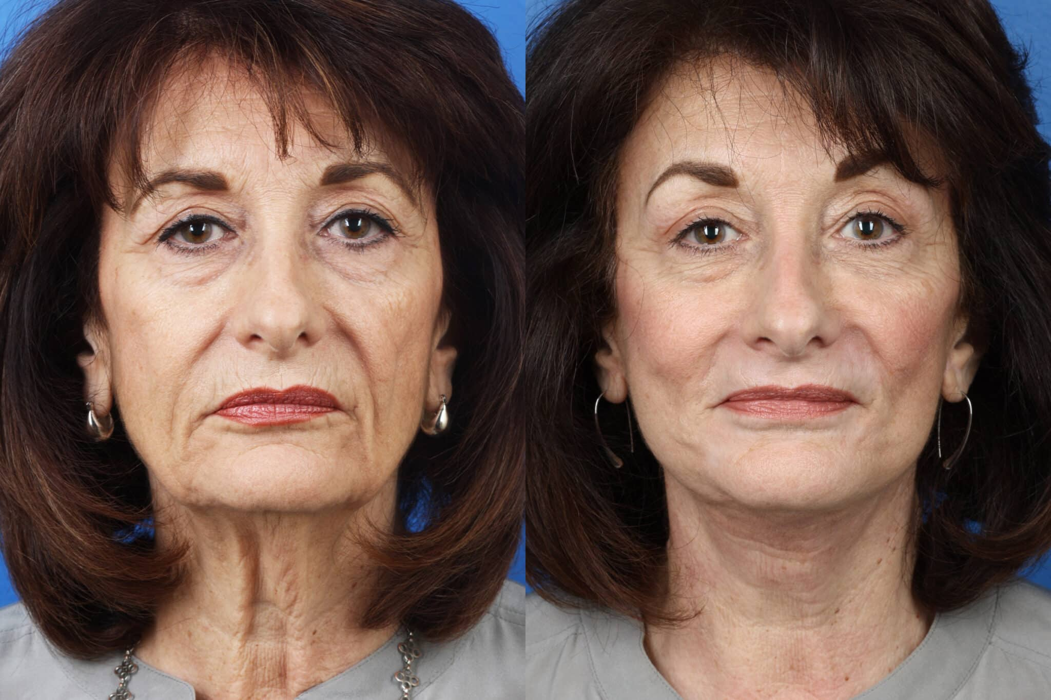 Facelift, Neck Lift, Dermabrasion and Earlobe Repair on a Female Patient by Dr. Miller