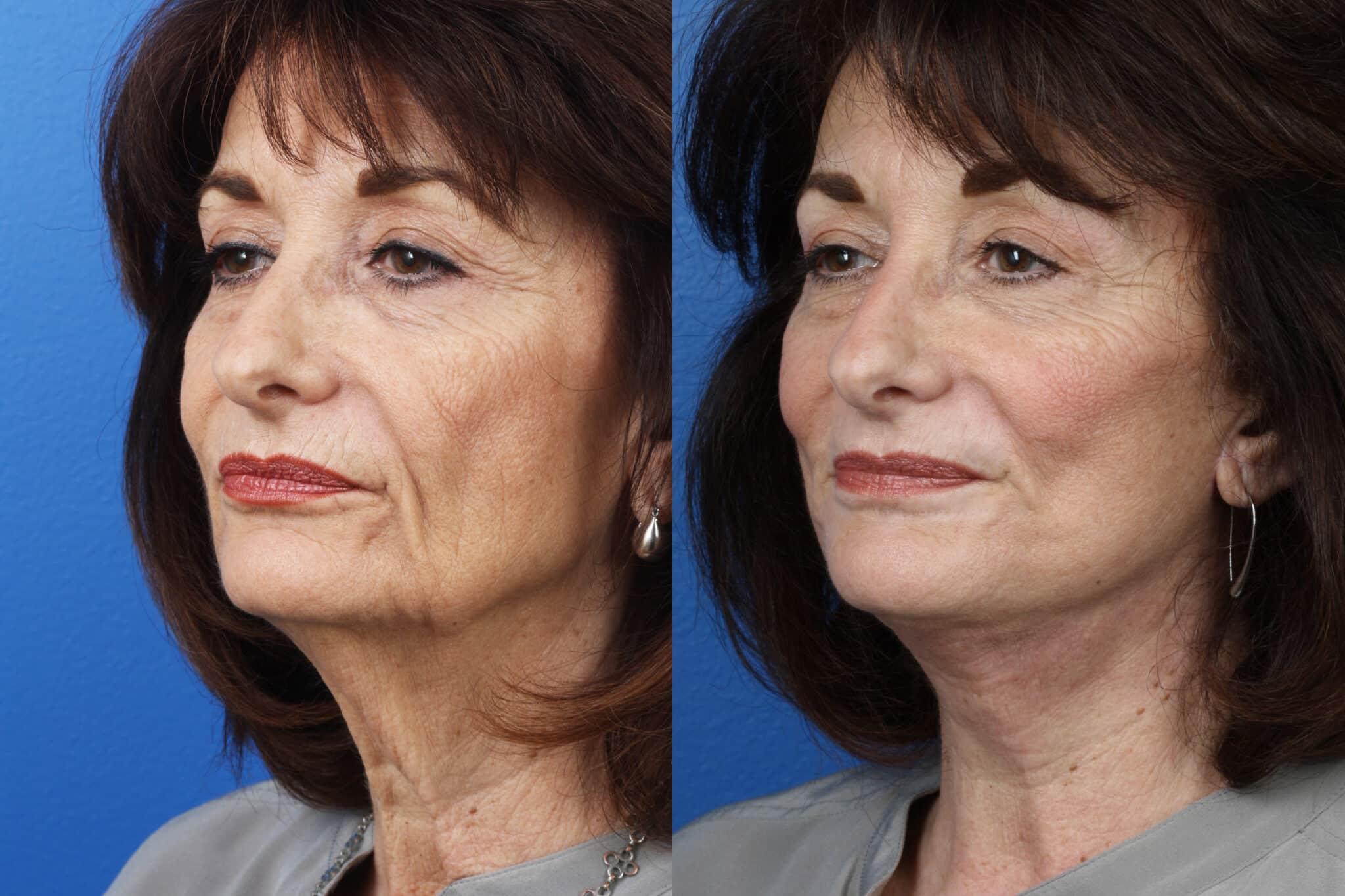 Facelift, Necklift and Dermabrasion to Rejuvenate the Skin by Dr. Miller