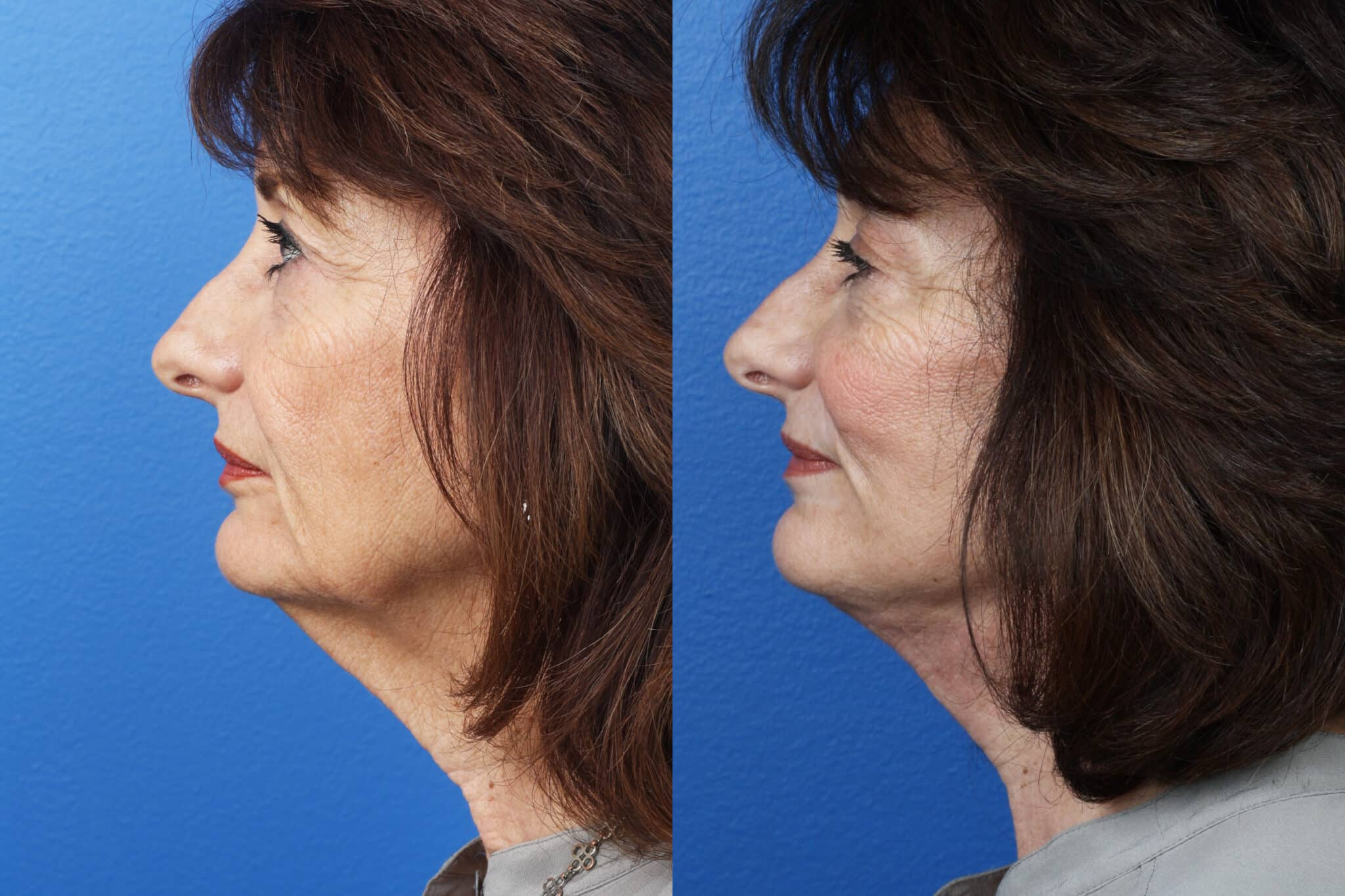 Facelift, Neck Lift, and Dermabrasion to Rejuvenate the Face of a Female Patient by Dr. Miller
