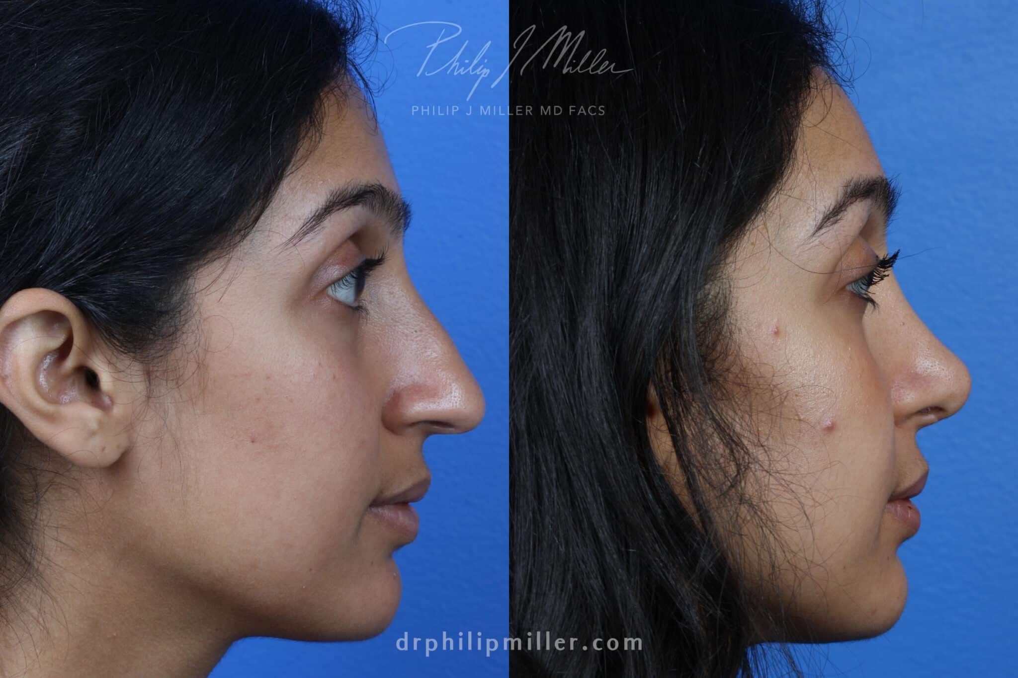Rhinoplasty to Correct the Nasal Bridge on a Female Patient by Dr. Miller