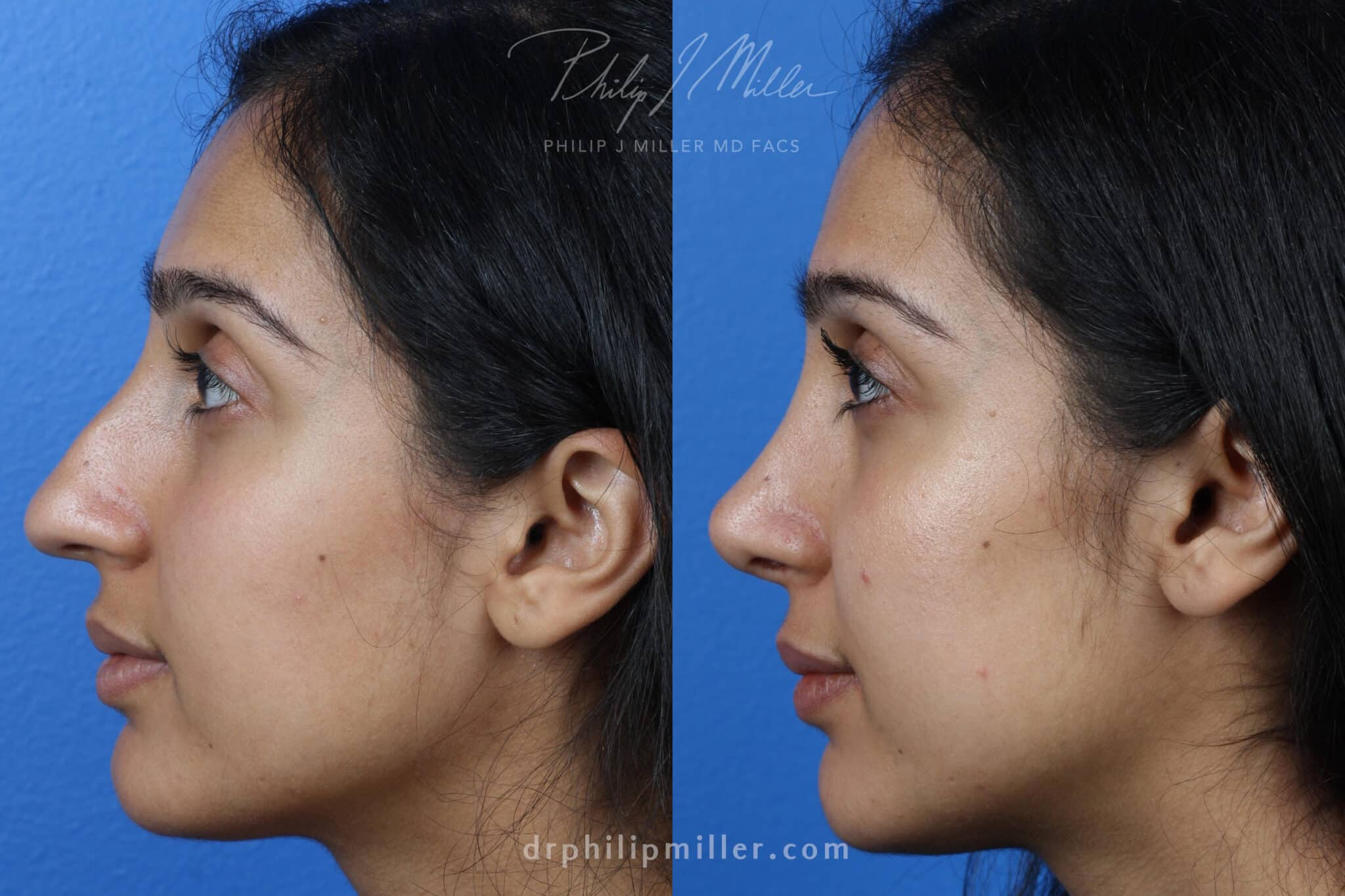 Rhinoplasty to Correct Nasal Bridge of a Female Patient by Dr. Miller