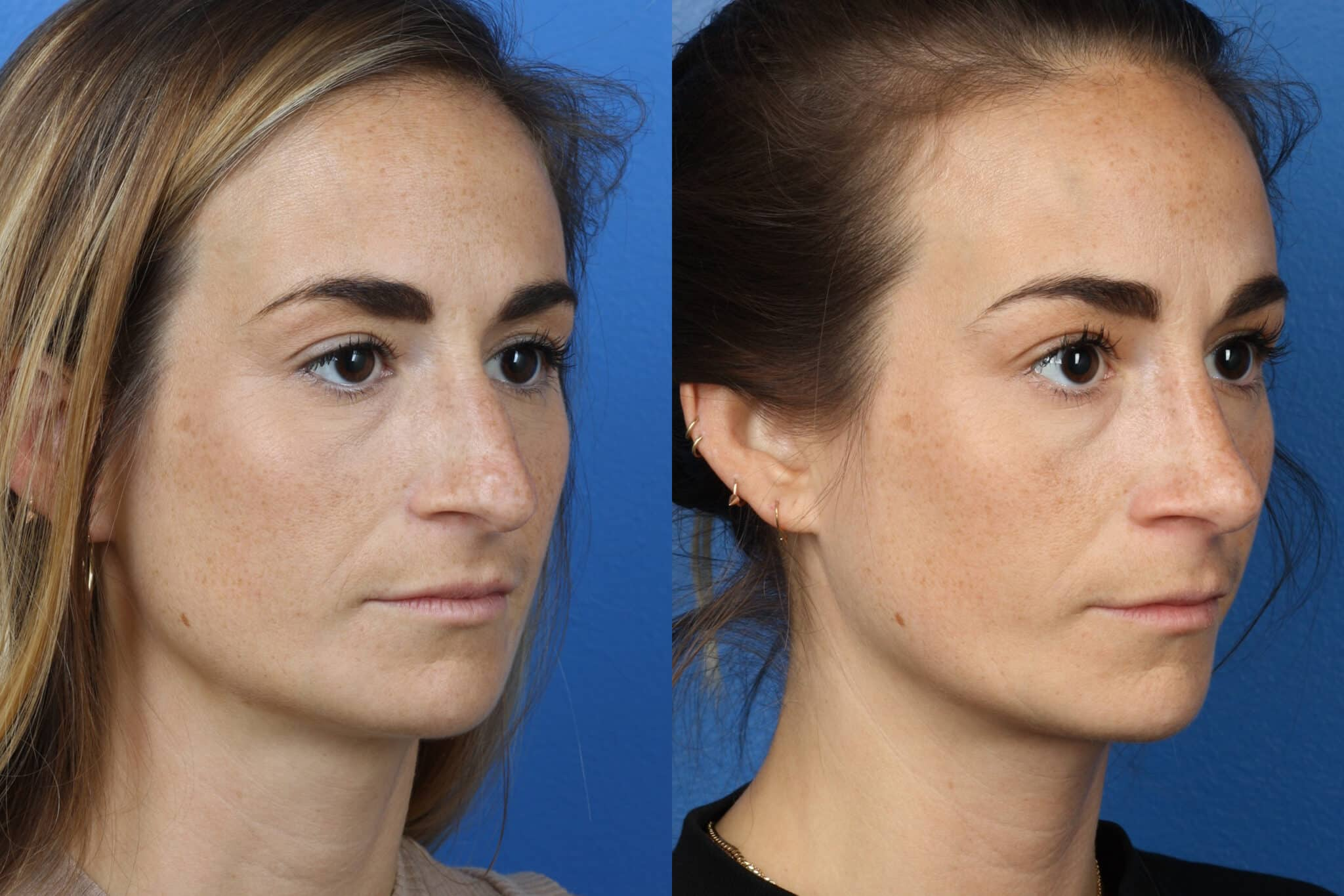 Rhinoplasty to remove hump from nasal bridge and refine the tip on a female patient by Dr. Miller
