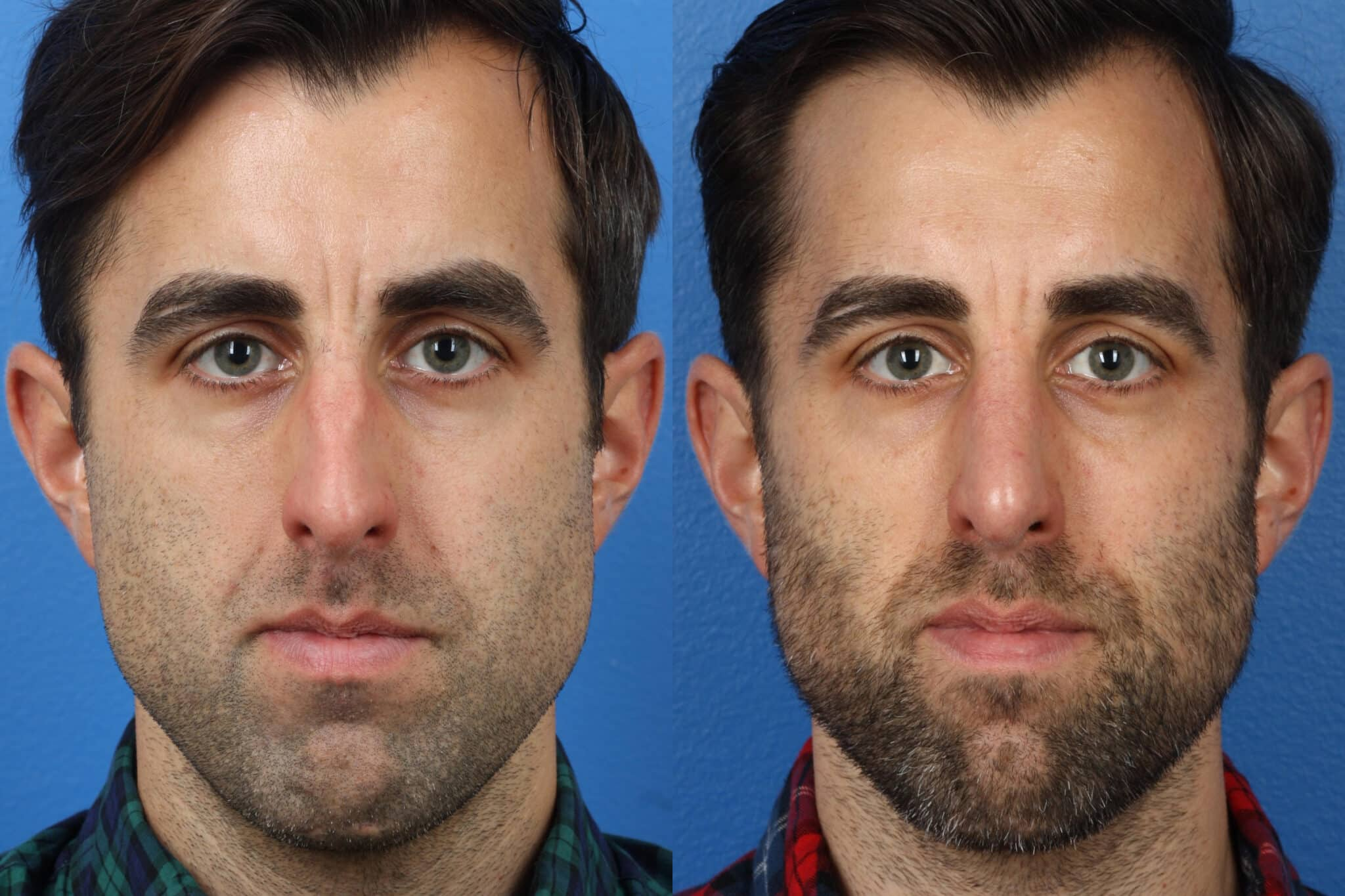 Rhinoplasty to Correct the Nasal Bridge of a Male Patient by Dr. Miller