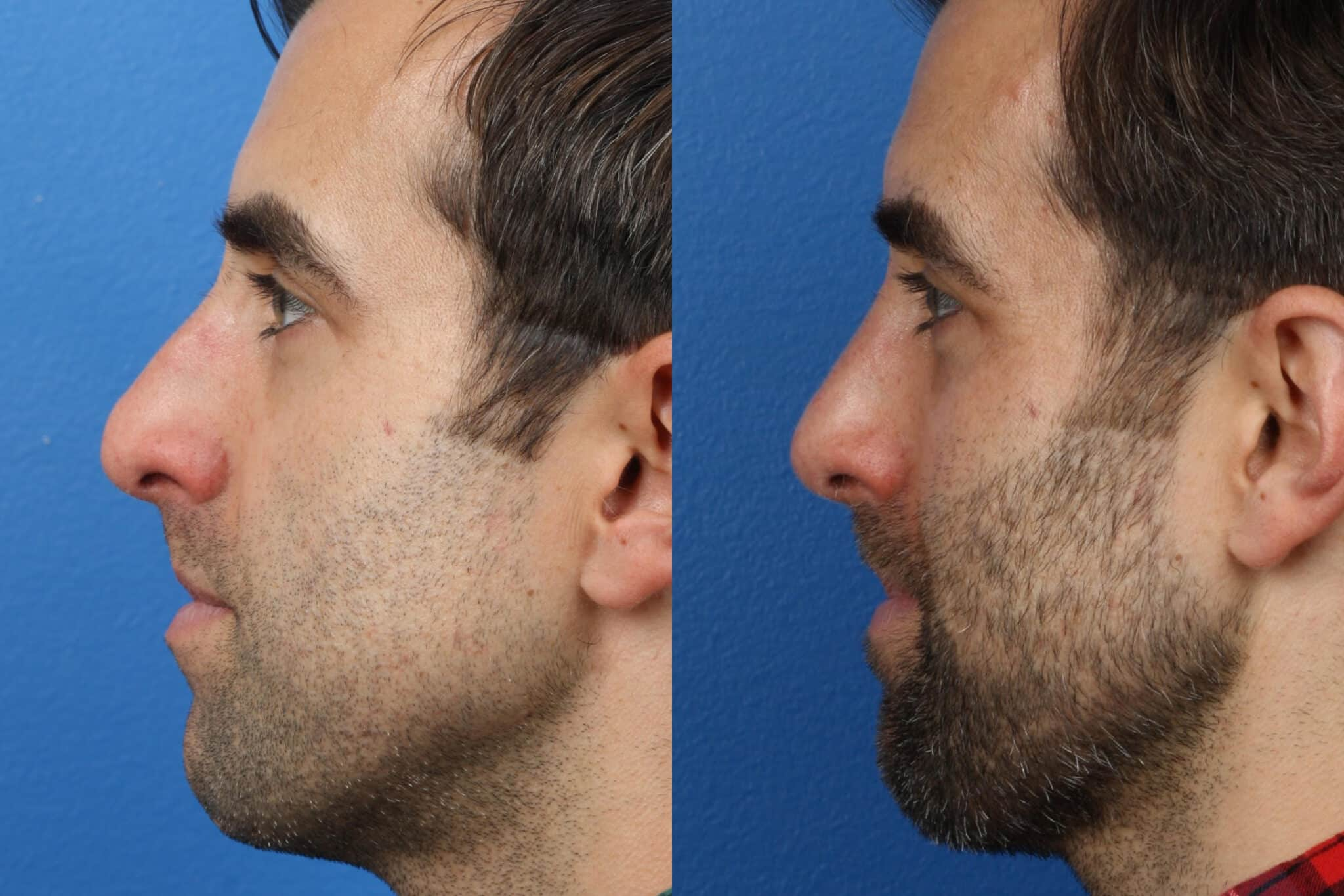 Rhinoplasty to Remove Bump from Nasal Bridge of a Male Patient by Dr. Miller