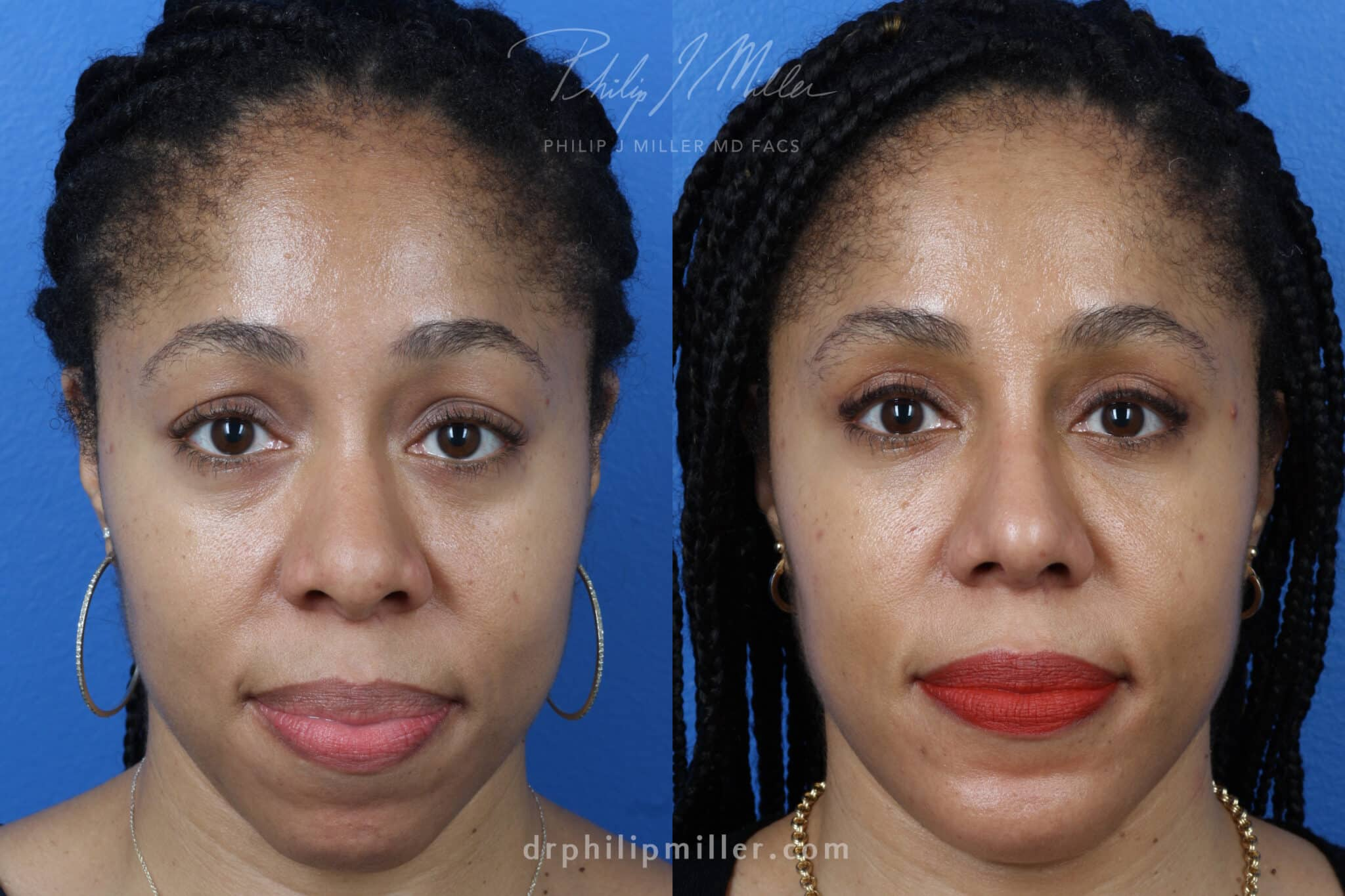 Rhinoplasty, Upper Blepharoplasty, Chin Implant, Fat Injections for Facial Contouring on a Female Patient by Dr. Miller