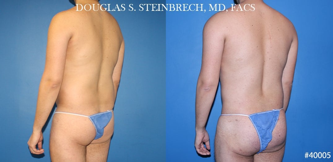Body banking and liposuction to sculpt the back and buttocks of a male patient by Dr. Steinbrech