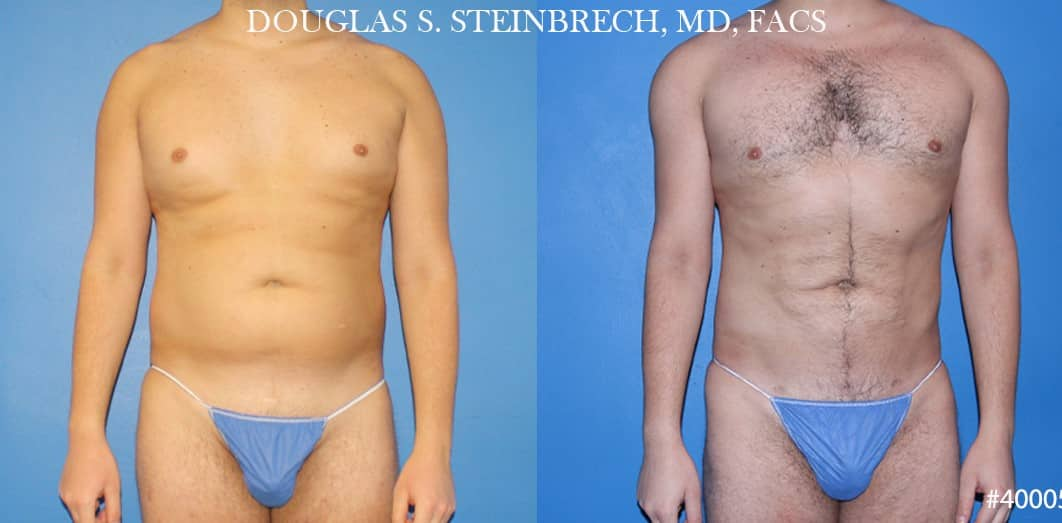 Body banking and liposuction to sculpt the midsection of a male patient by Dr. Steinbrech