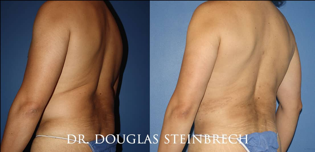 Torso Tuck to reduce and sculpt the back and midsection by Dr. Steinbrech