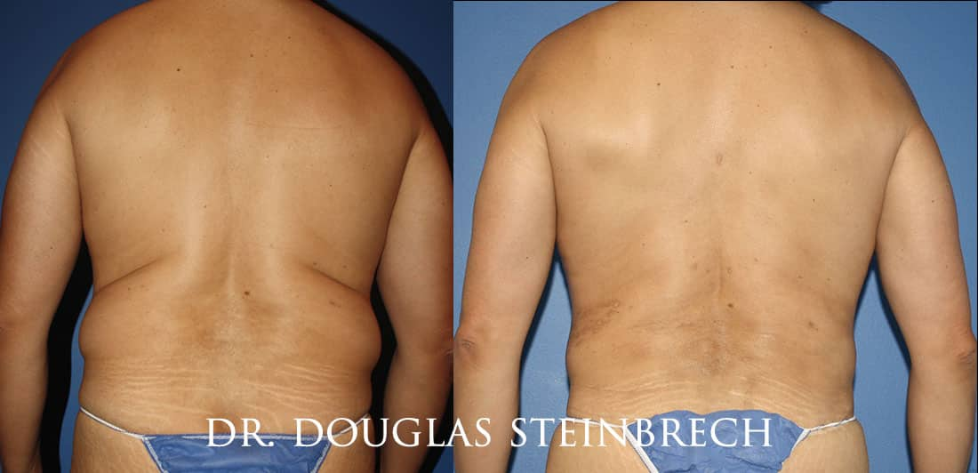Torso Tuck to reduce and sculpt the back and waistline by Dr. Steinbrech