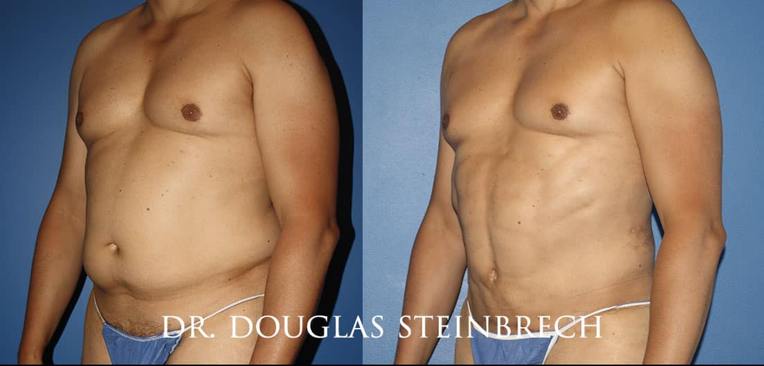 Torso Tuck to reduce and sculpt the midsection by Dr. Steinbrech