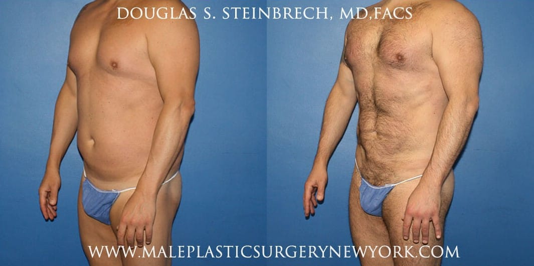 270 Torso tuck for abdominal sculpting by Dr. Steinbrech