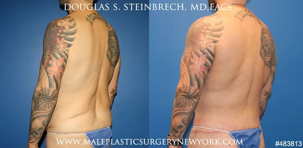 360 Torso tuck with body banking by Dr. Steinbrech
