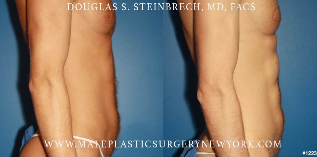 Abdominal implants for body scultping by Dr. Steinbrech